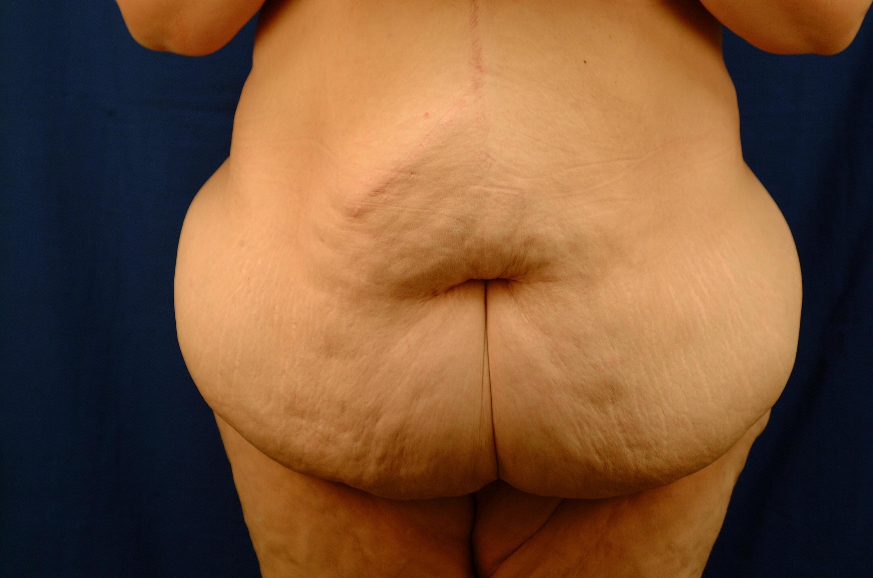 Newport Beach Post Weight Loss Before Front View