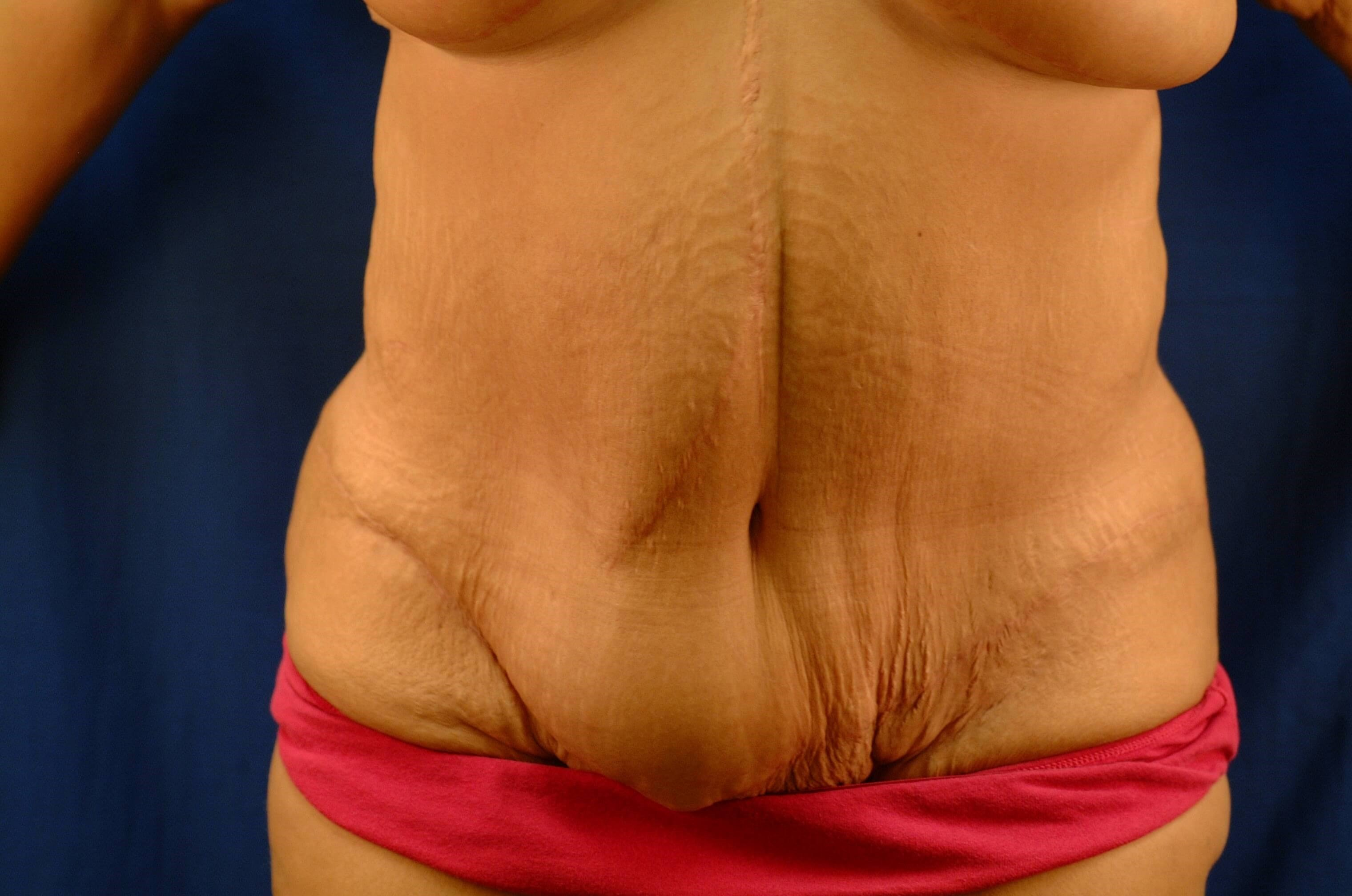 Newport Beach Post Weight Loss Side View After