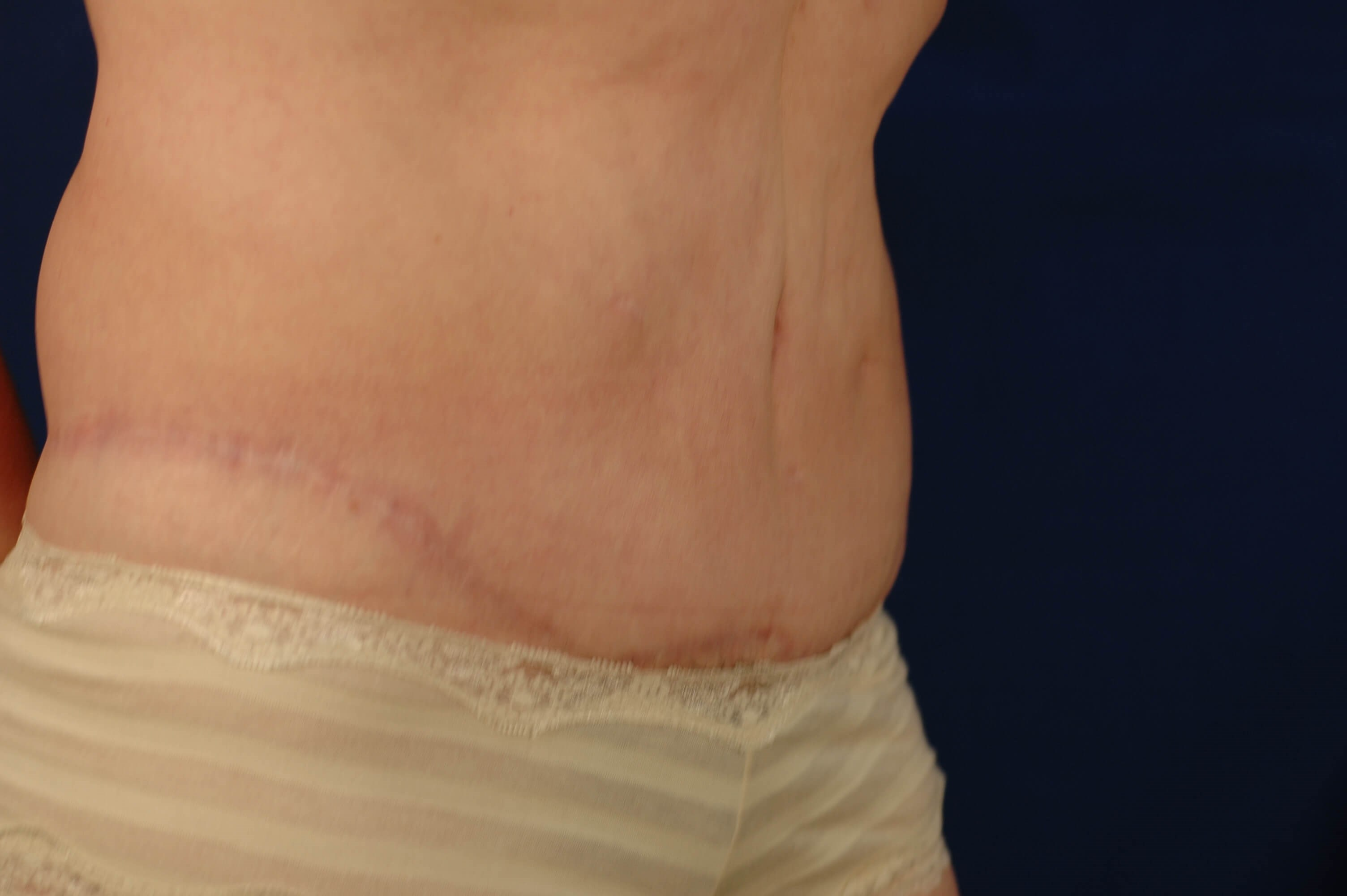Newport Beach Post Weight Loss Oblique View After