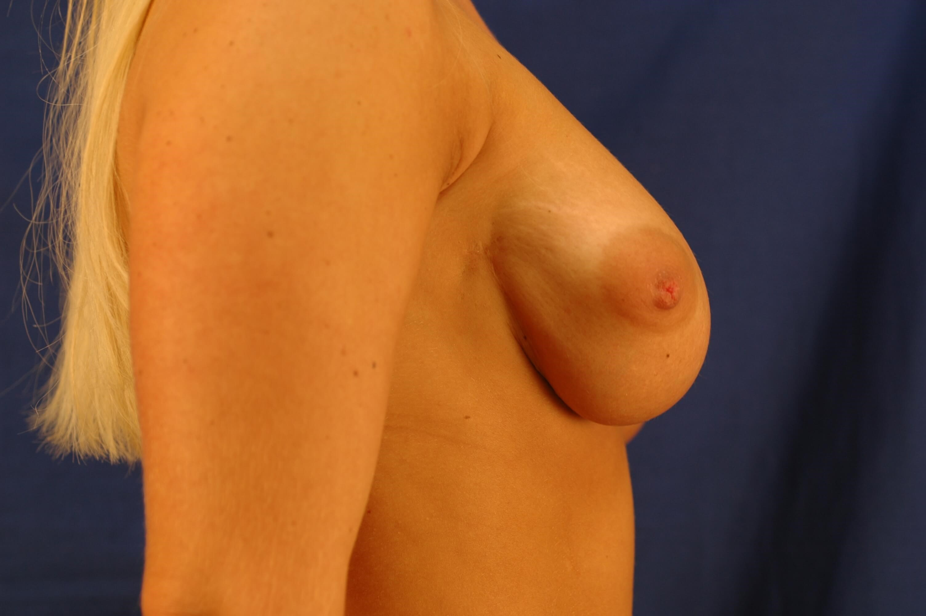 Newport Beach Breast Lift Before