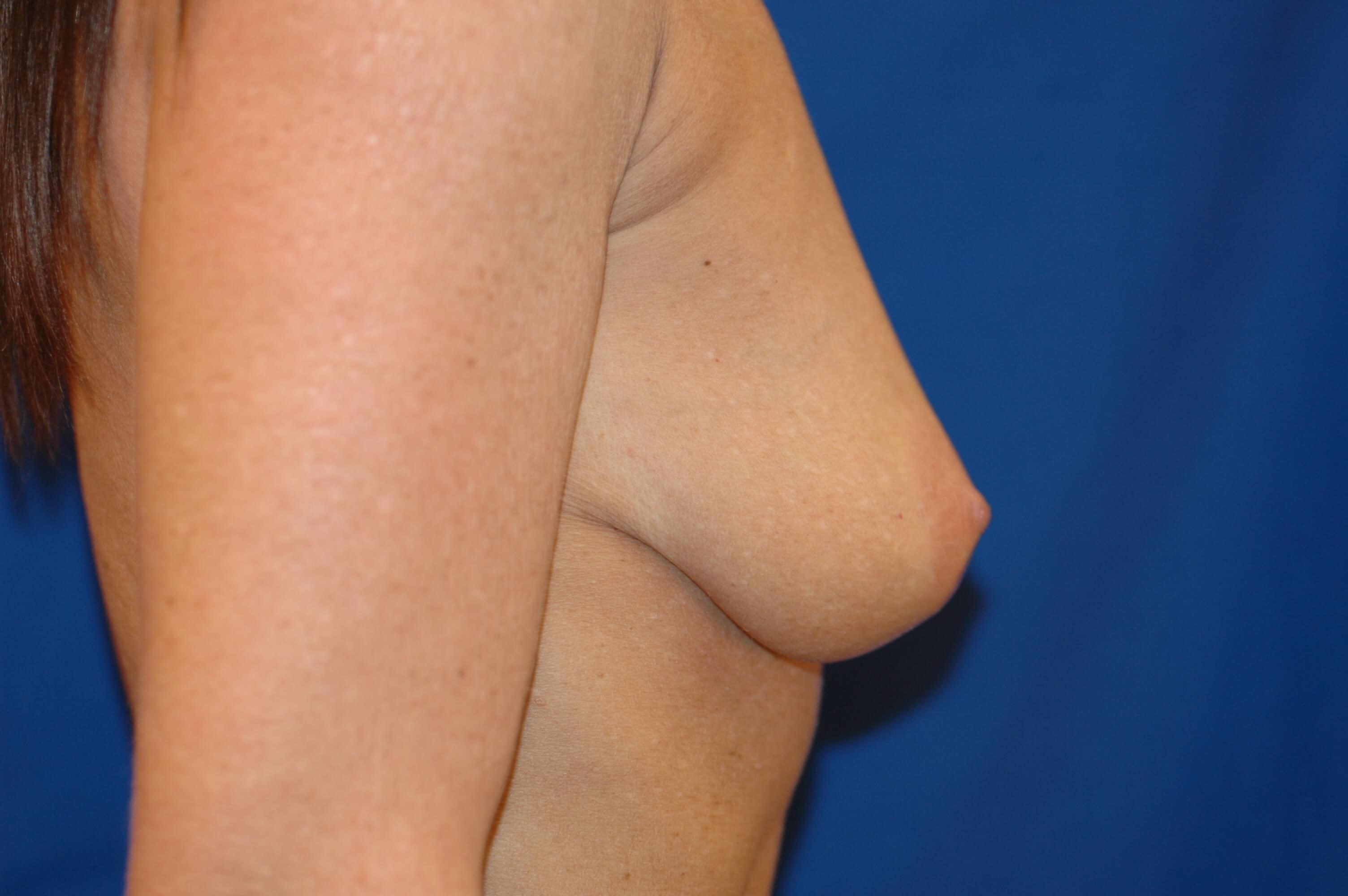 Newport Beach Breast Lift &Aug Side View Before