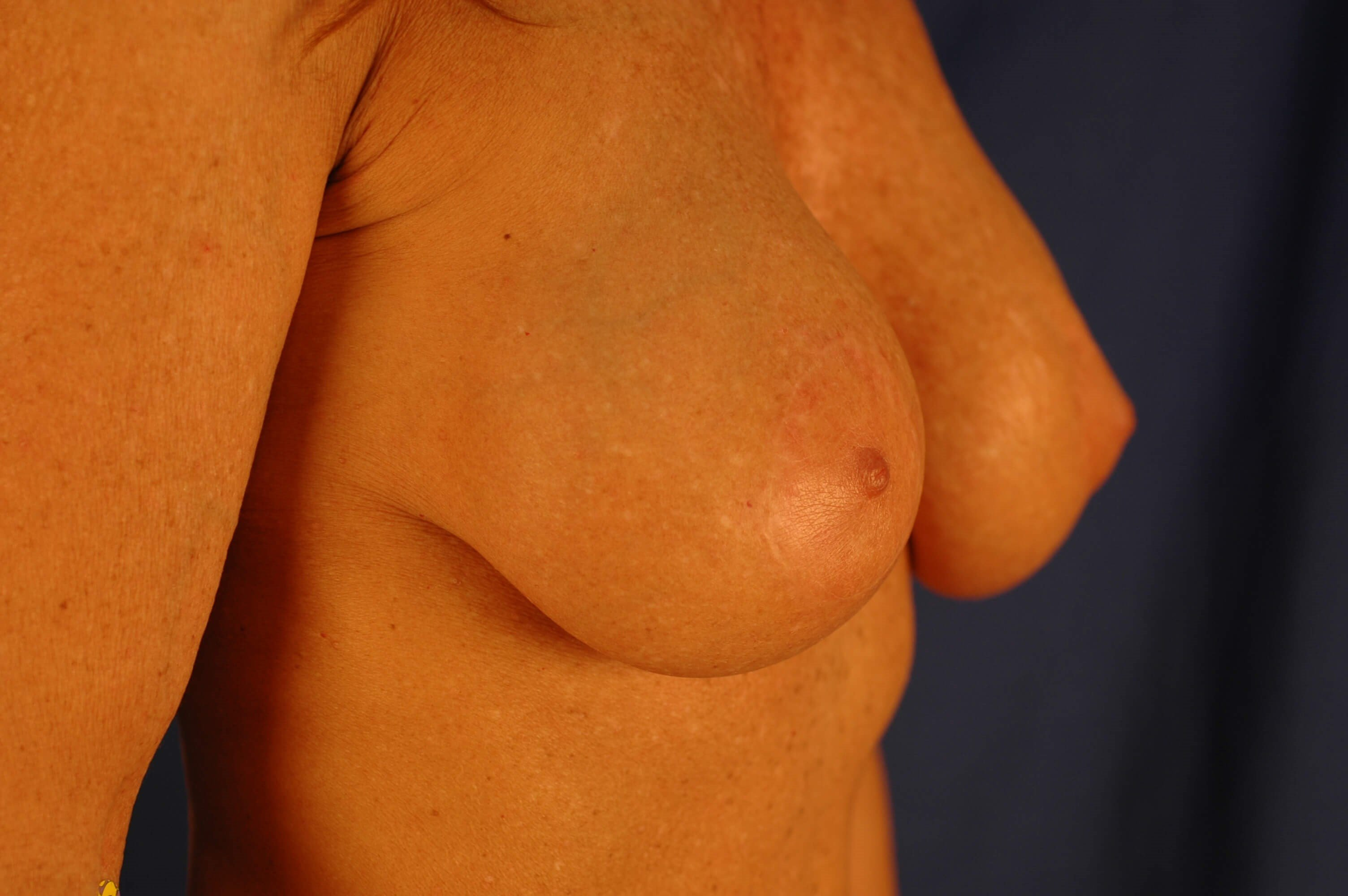 Newport Beach Breast Lift &Aug Oblique View After
