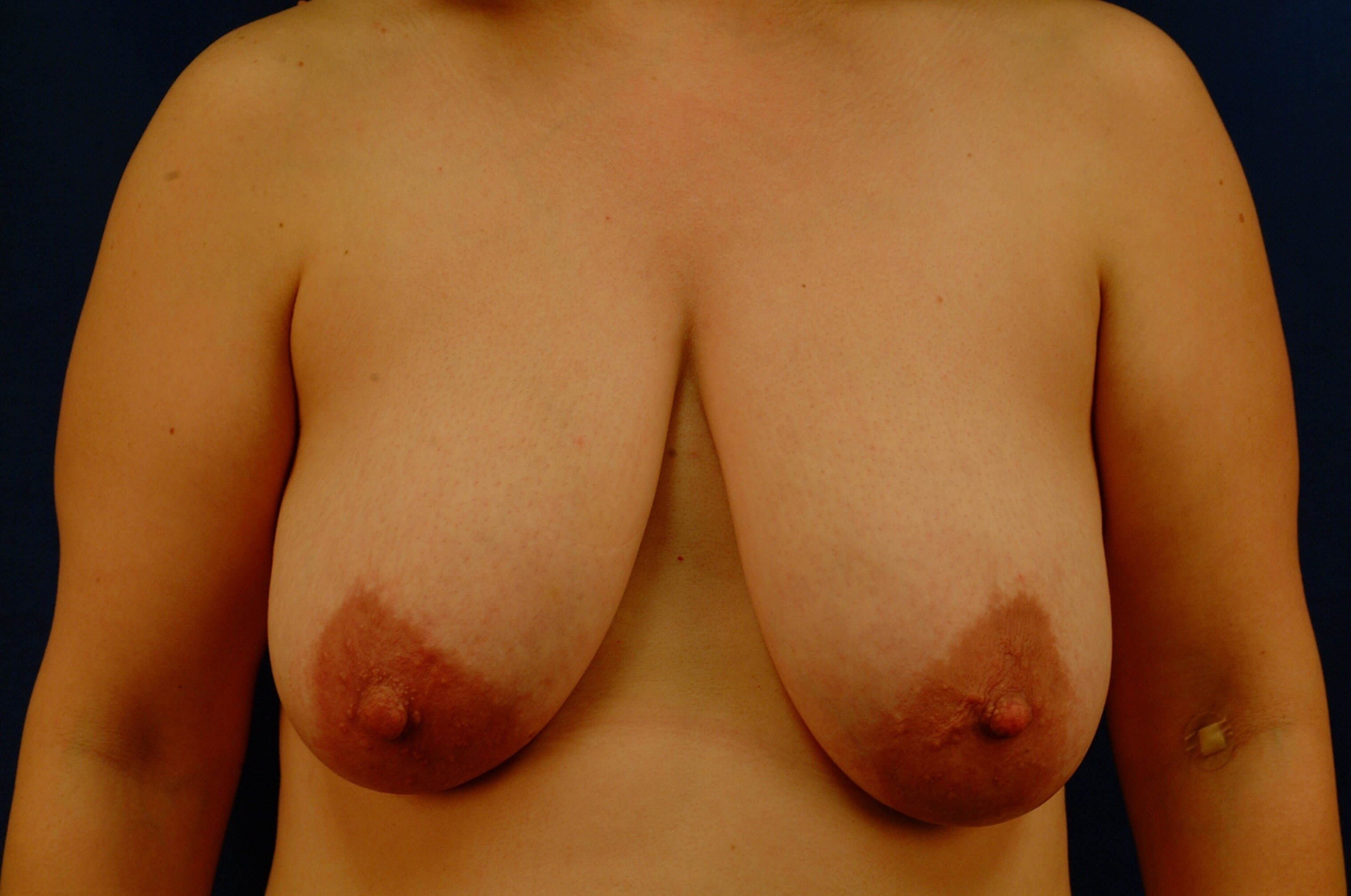 Newport Beach Breast Lift Before Front View