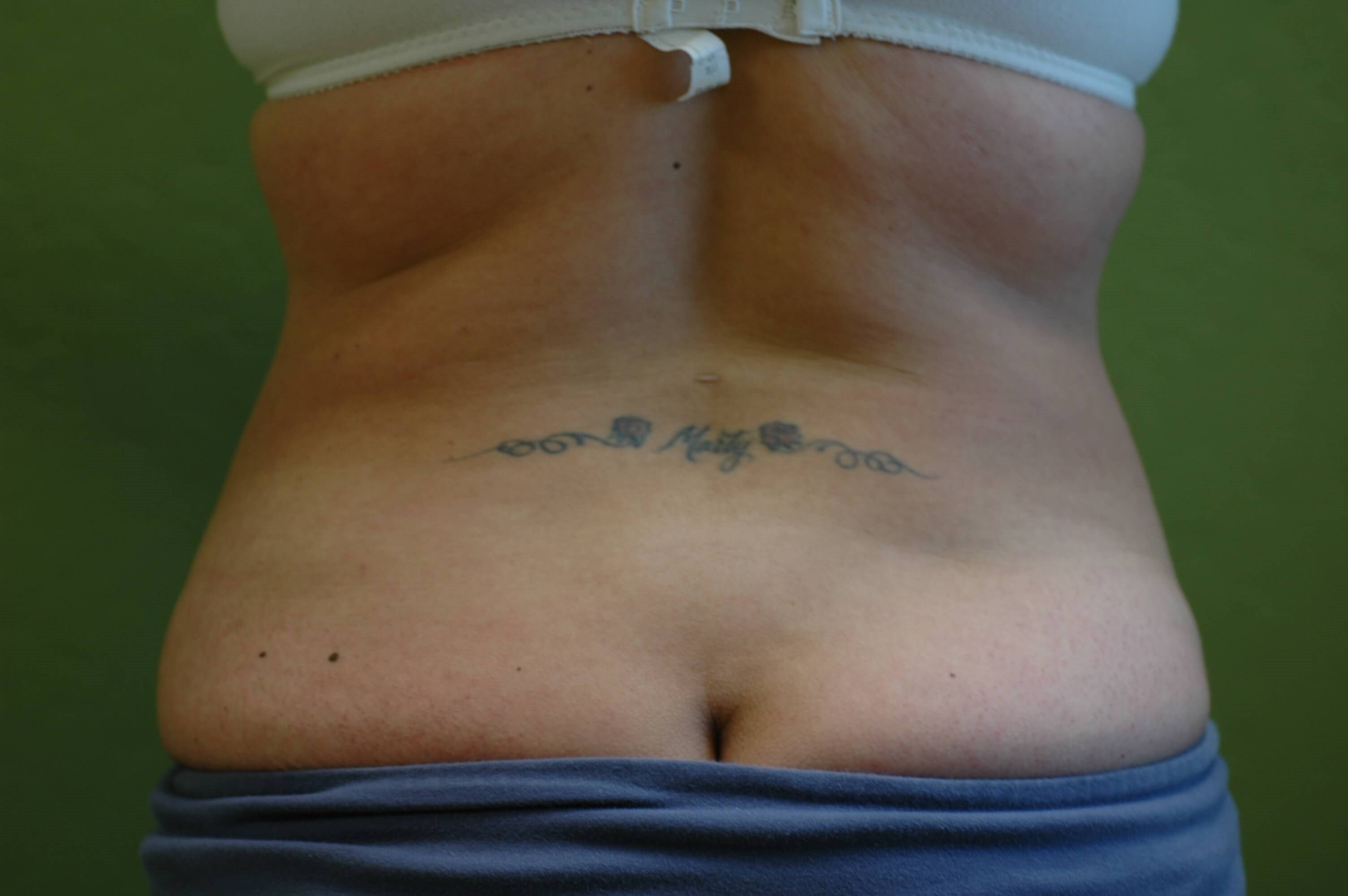 Newport Beach Liposuction After