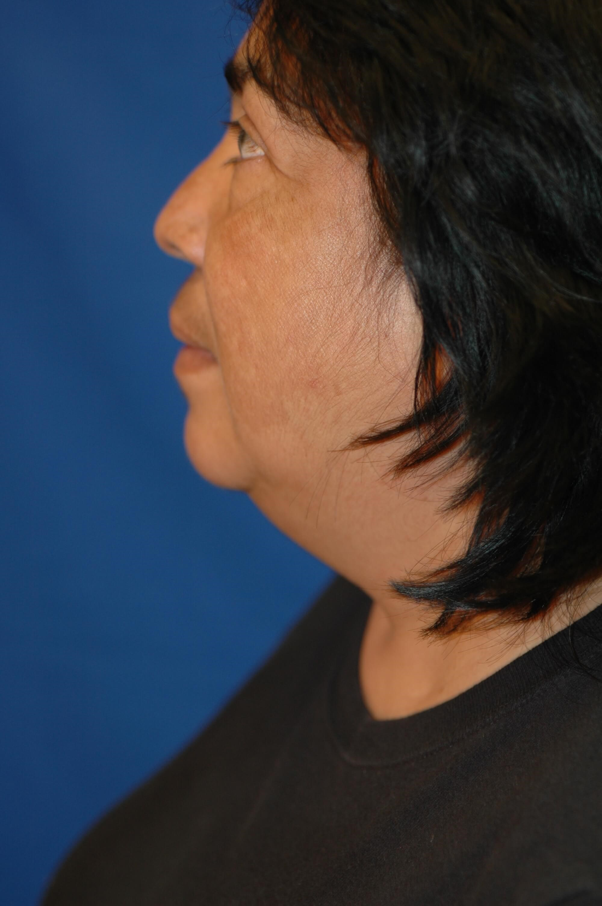 Dr. Bunkis Facial Contouring Side View Before