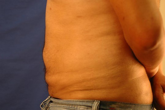 Newport Beach Liposuction Side View After