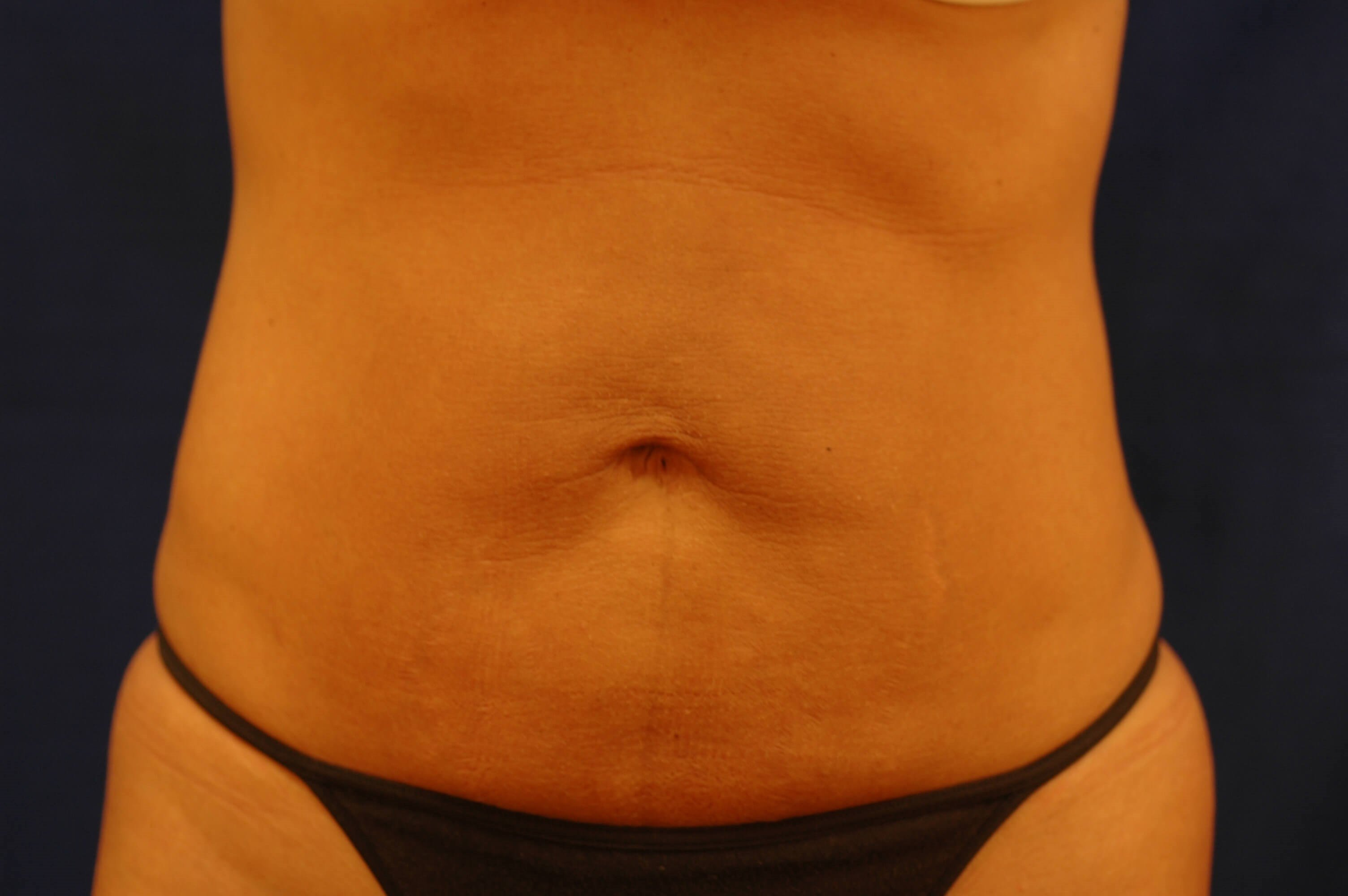 Newport Beach Liposuction Before