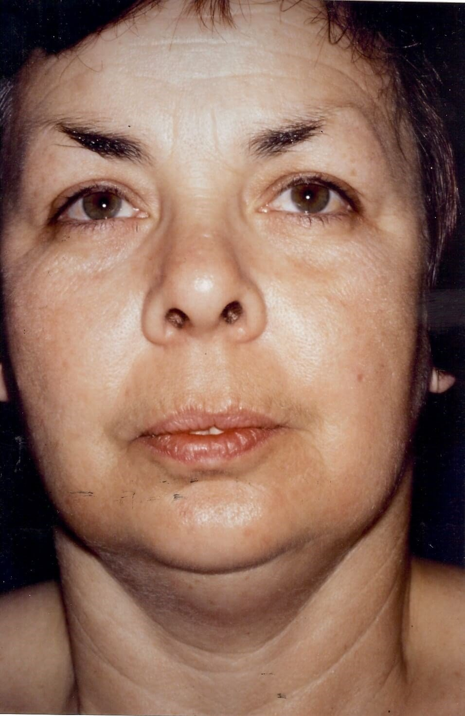 Dr. Bunkis Facial Contouring Before Front View