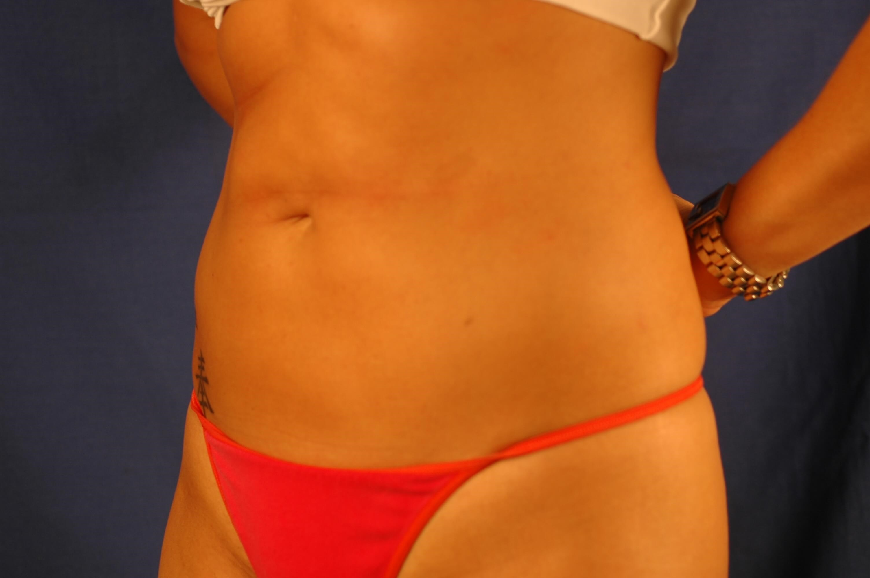 Newport Beach Liposuction Oblique View After
