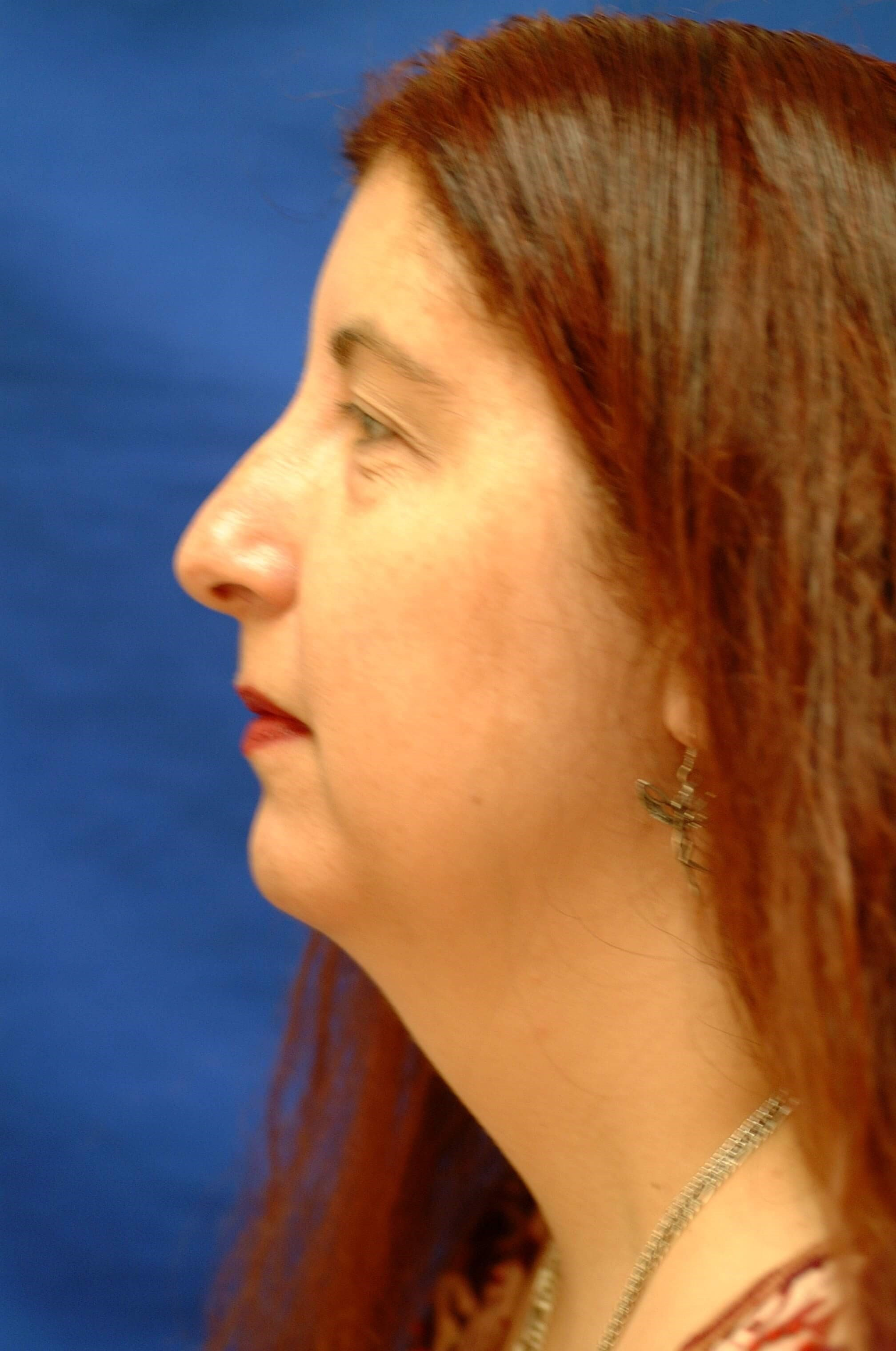 Dr. Bunkis Facial Rejuvenation Before Side View