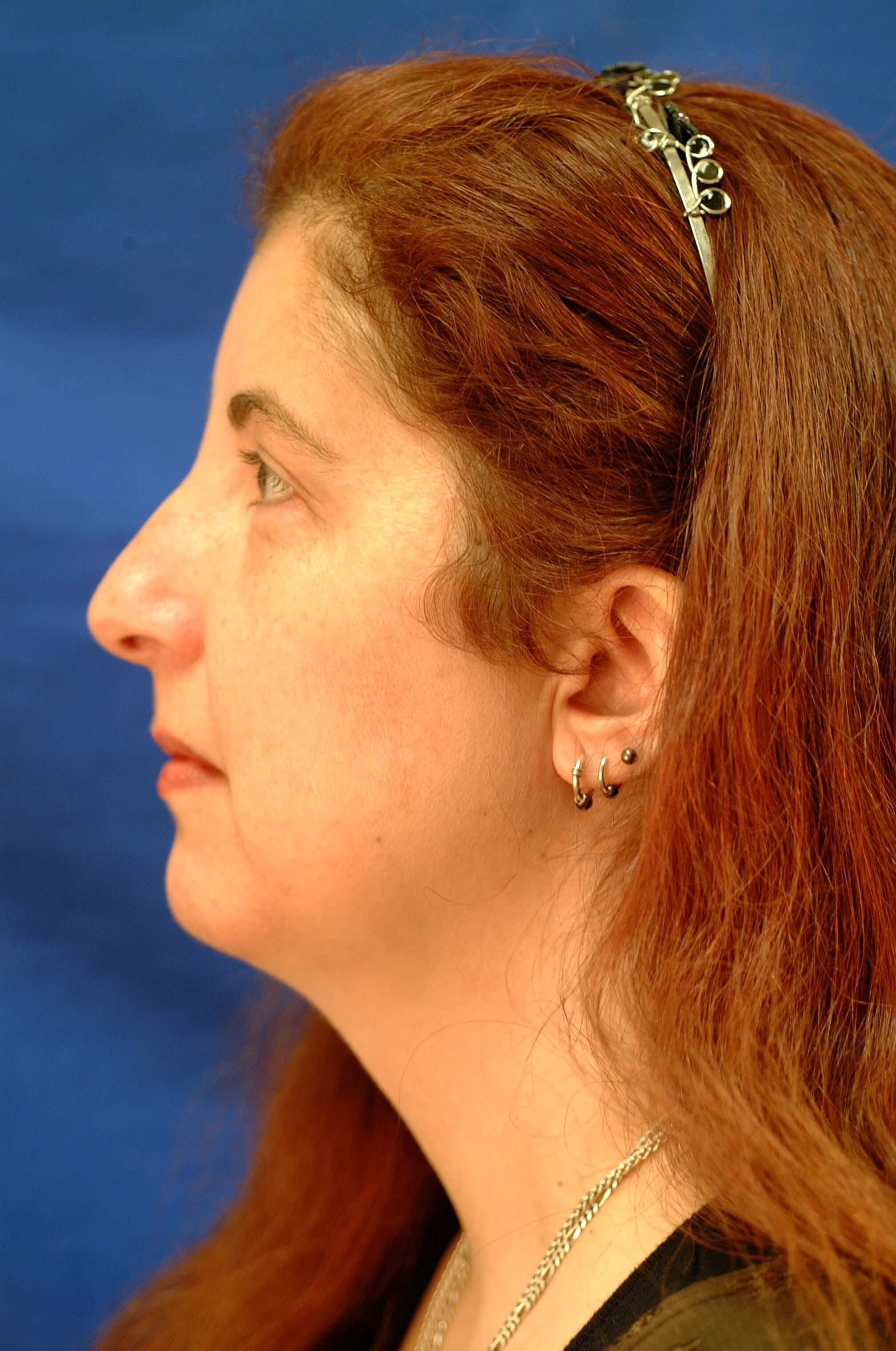 Dr. Bunkis Facial Rejuvenation After Side View