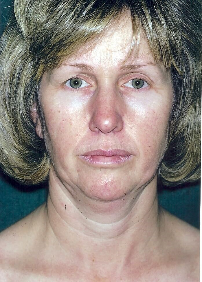 Dr. Bunkis Facial Rejuvenation Before Front View