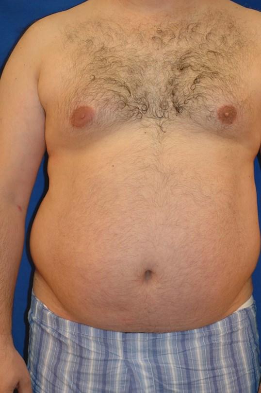 Newport Beach Liposuction by Dr  Juris Bunkis of Orange