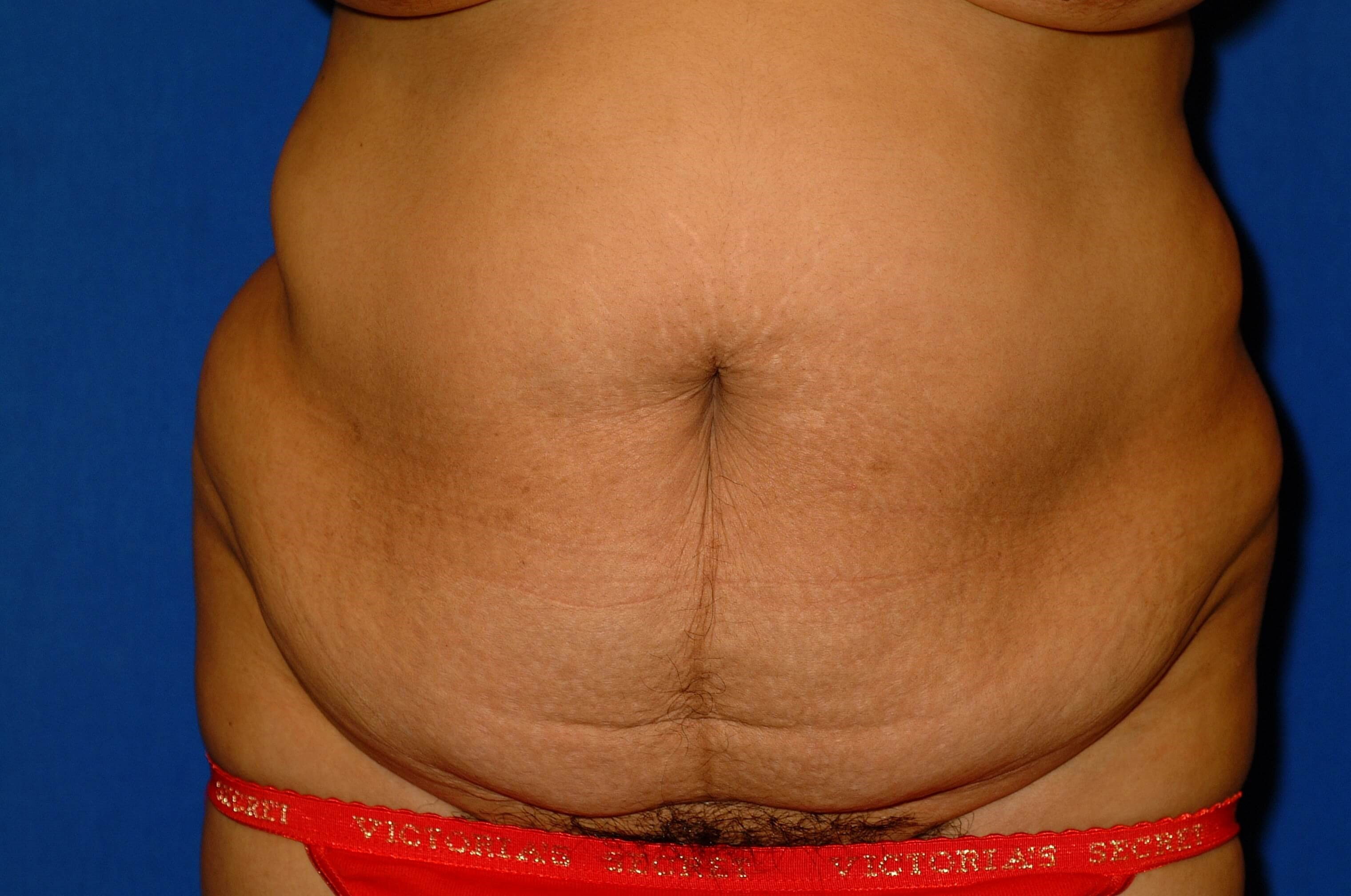 Newport Beach Body Contouring Before Front View