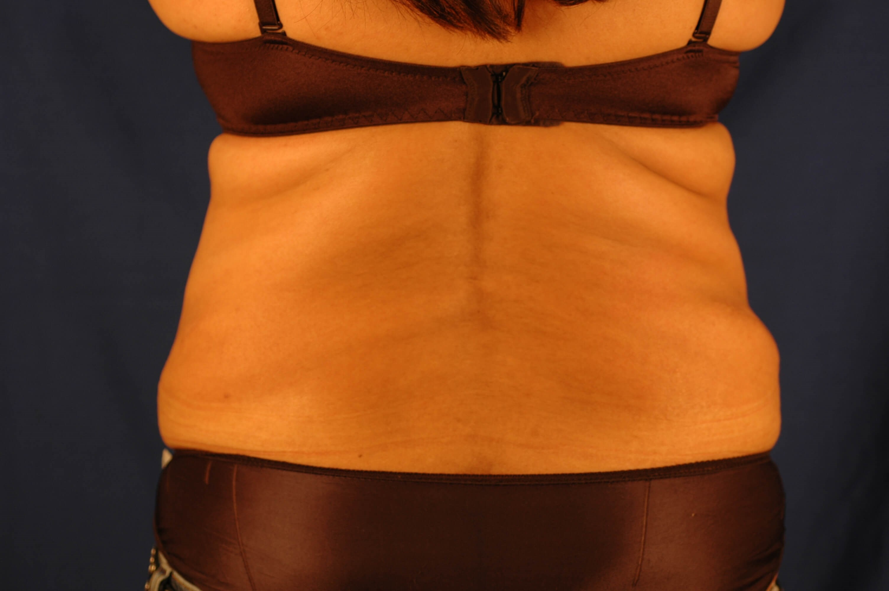 Newport Beach Body Contouring After Back View