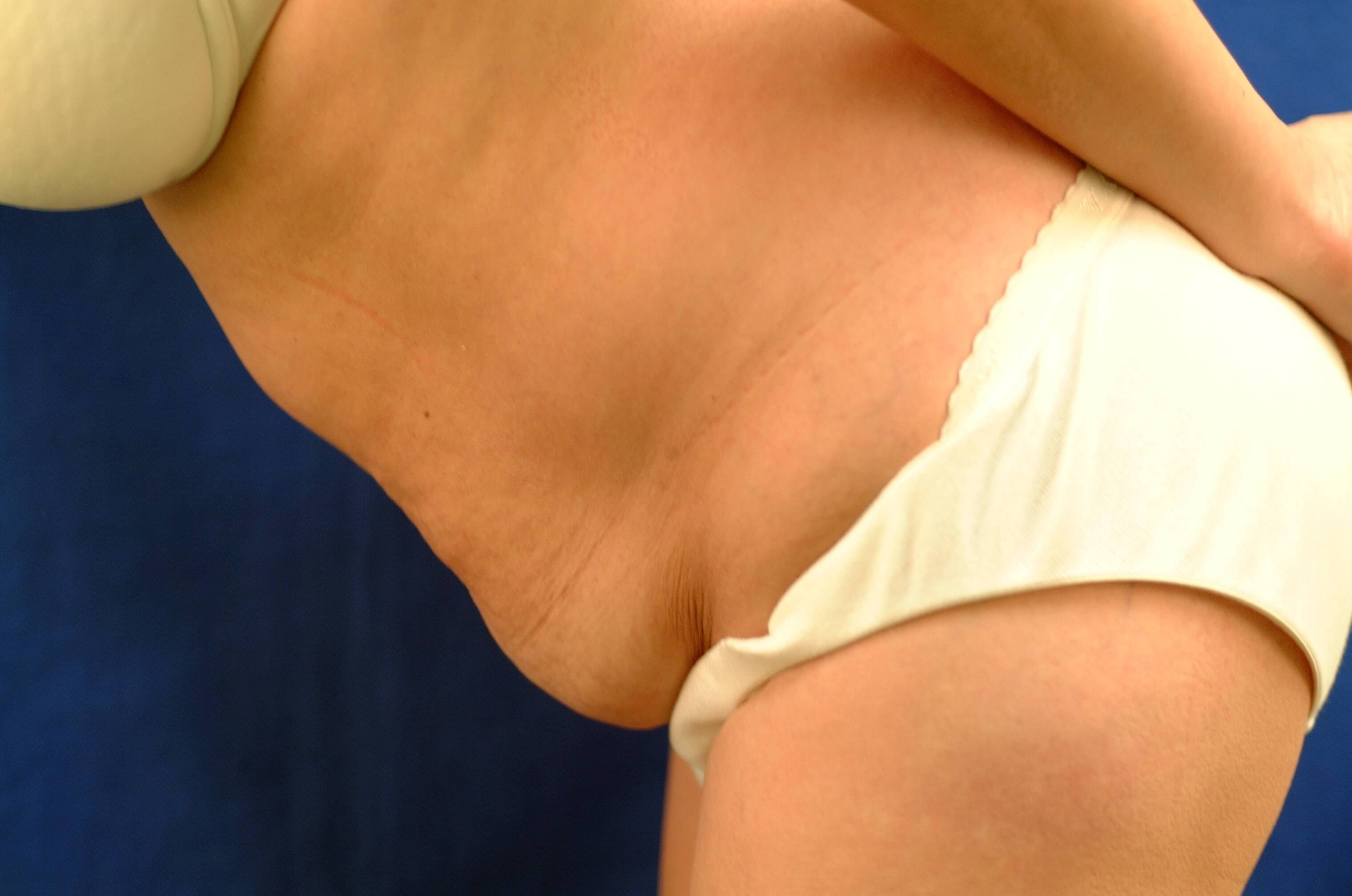 Newport Beach Liposuction Before Side View Flexing