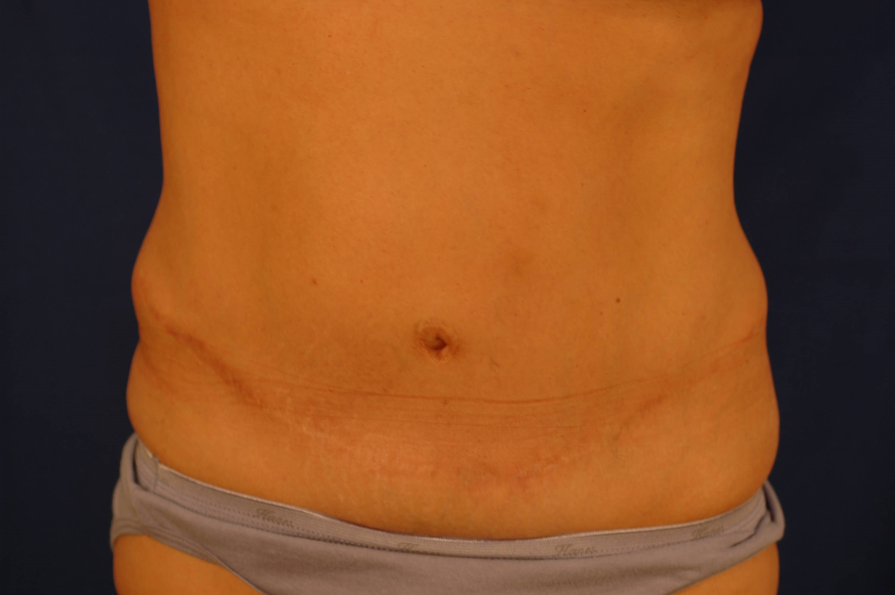 Newport Beach Body Contouring After Front View