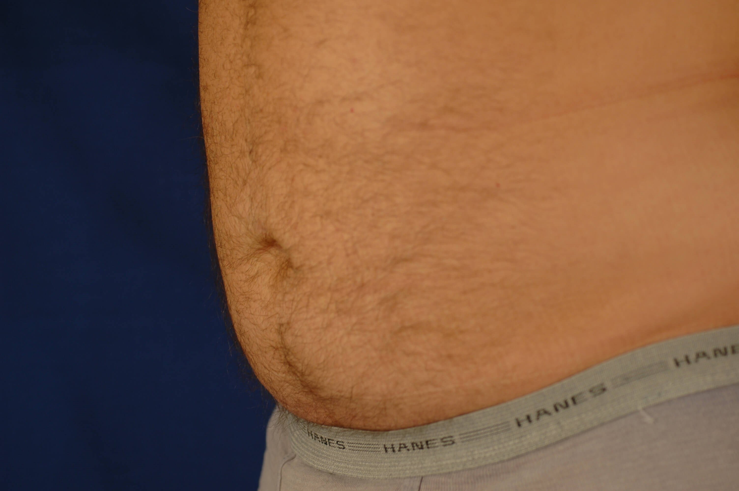Newport Beach Liposuction After Oblique