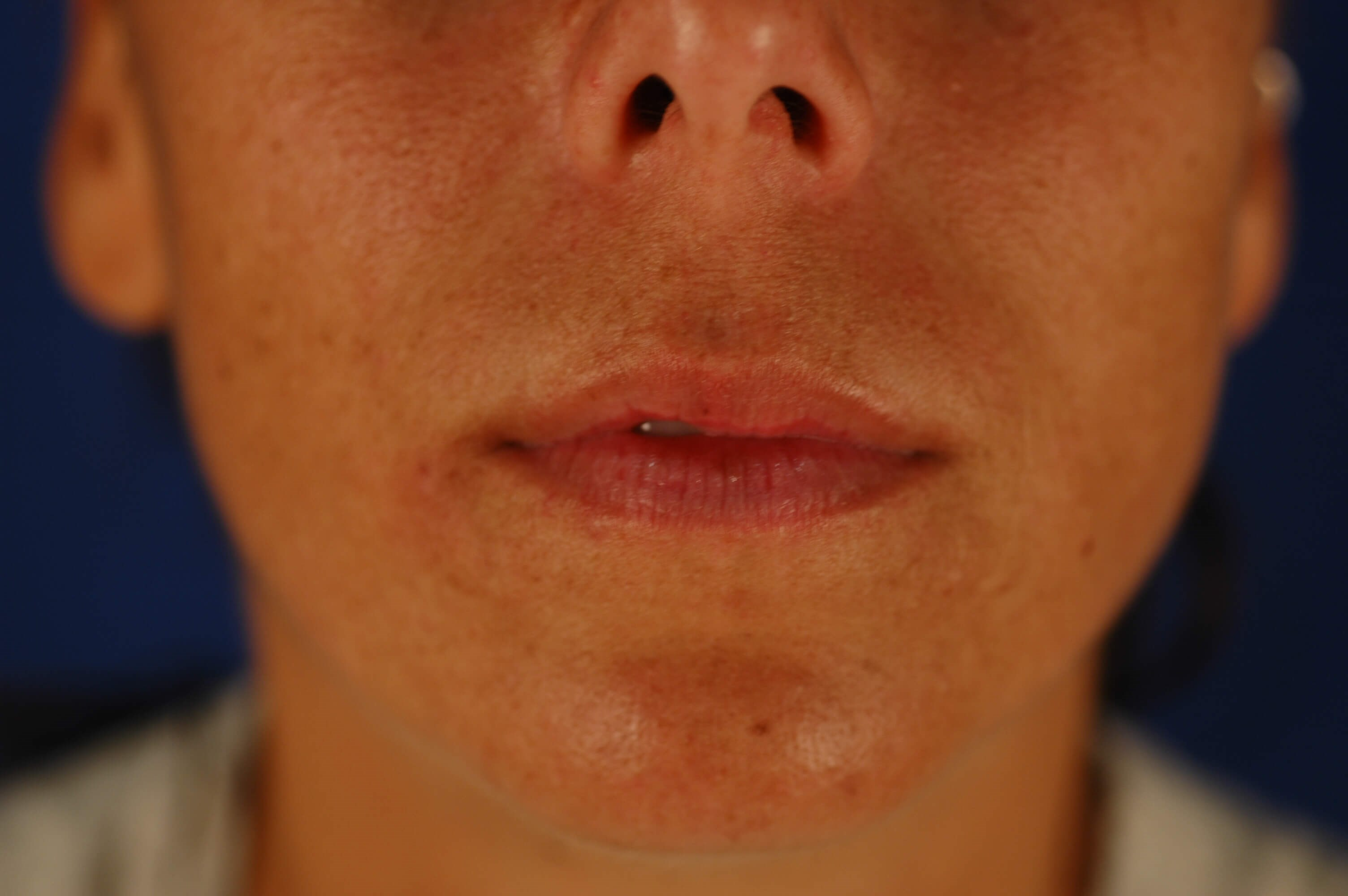 Newport Beach Lip Enhancements Before