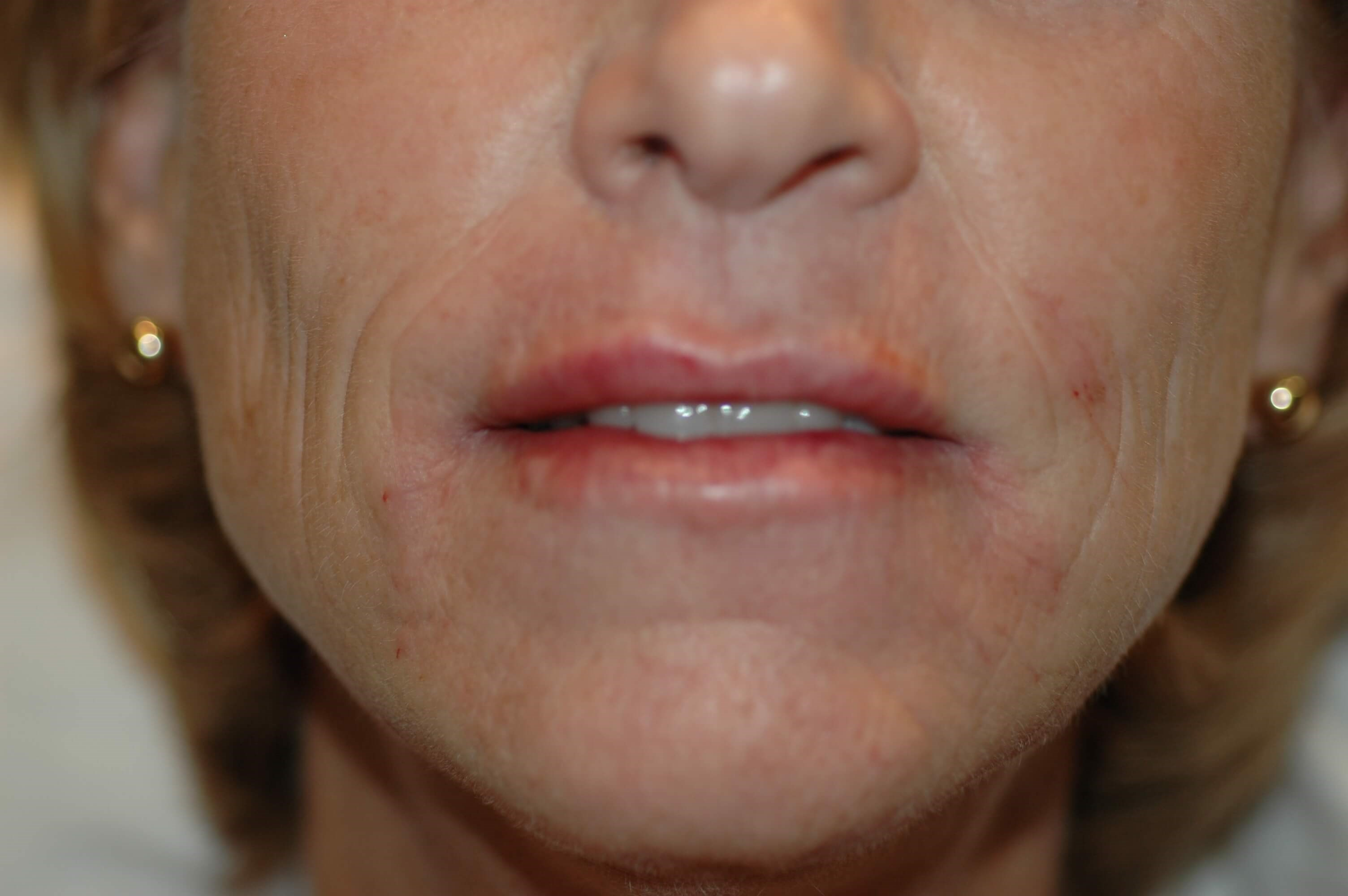 Newport Beach Lip Enhancements Front View After