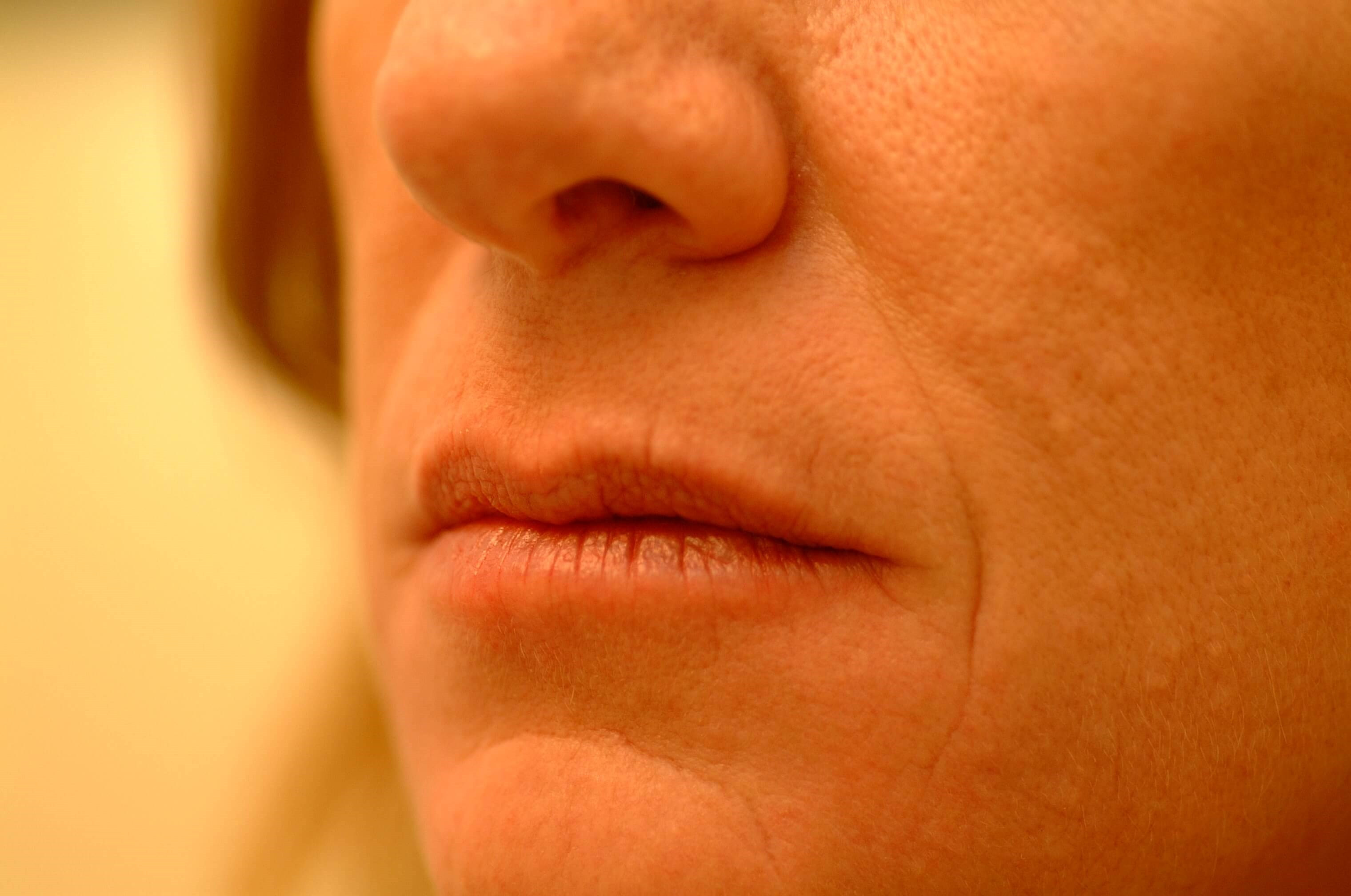 Newport Beach Lip Enhancements Oblique View Before