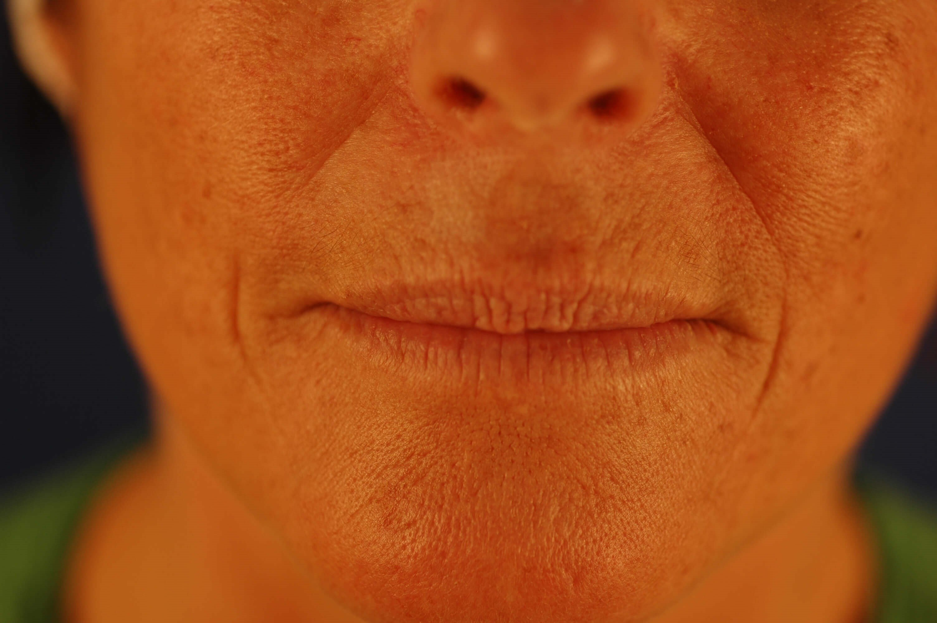 Newport Beach Lip Enhancements Before Front View