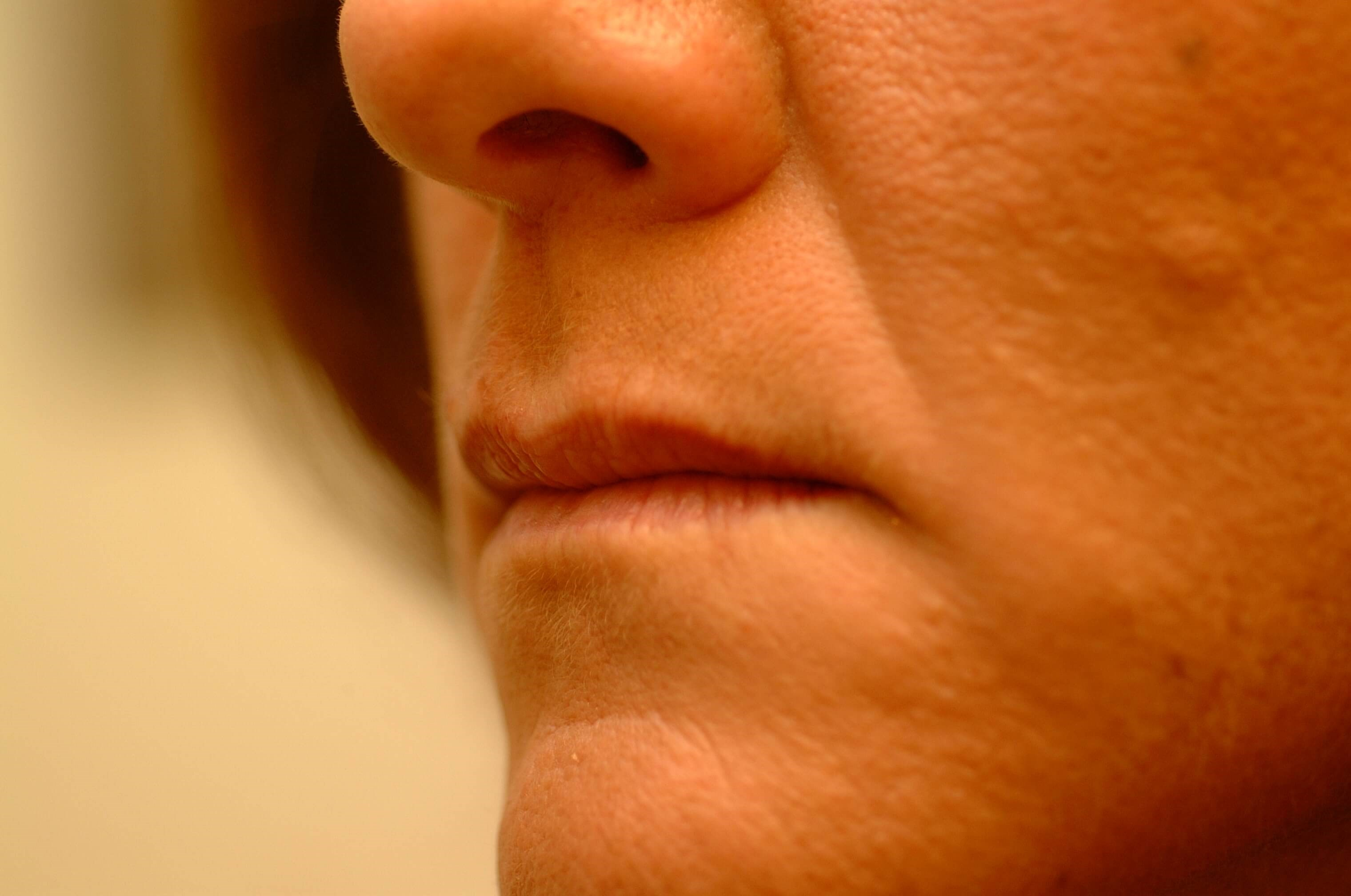 Newport Beach Filler/Botox Oblique View Before