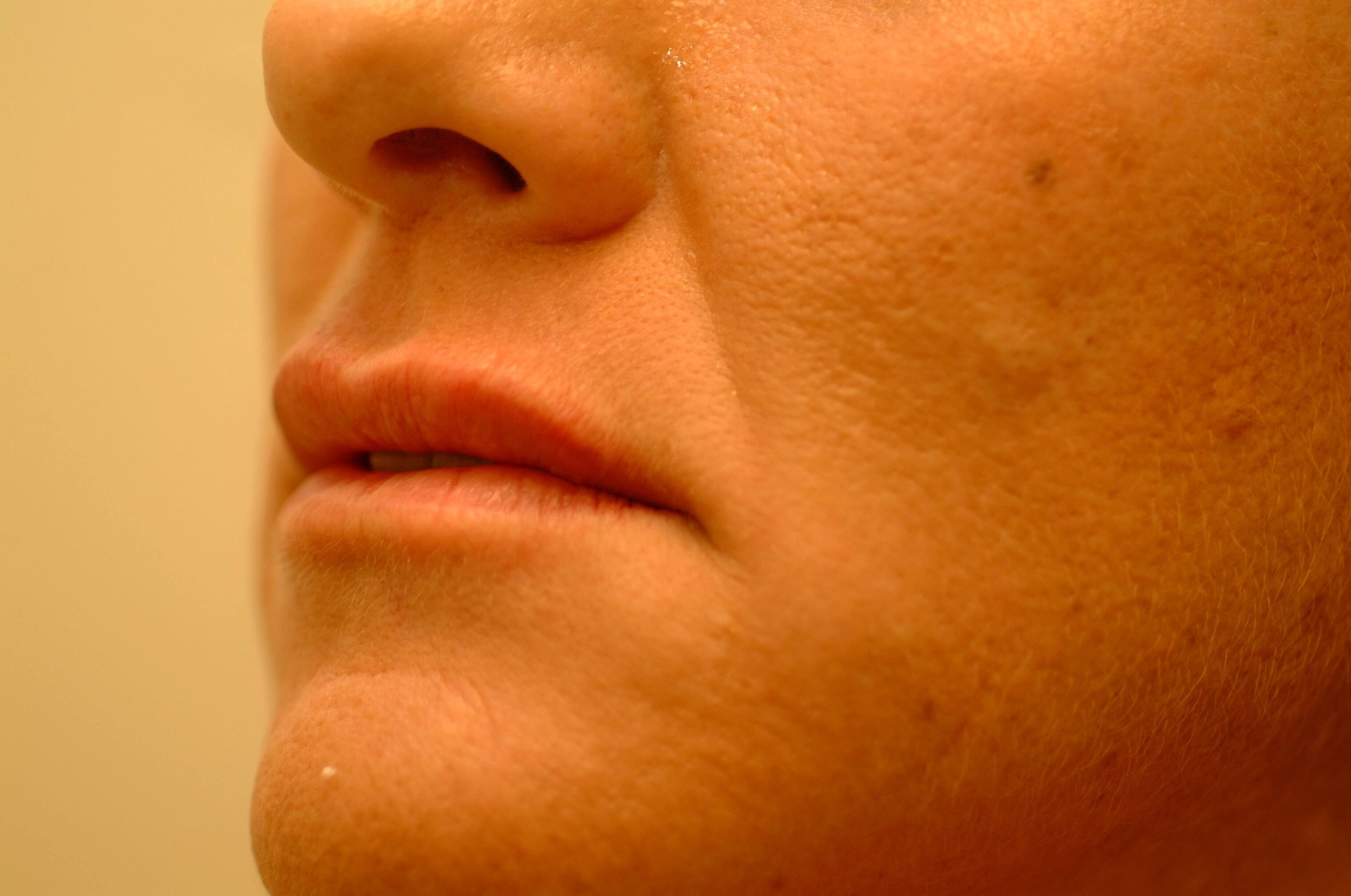 Newport Beach Filler/Botox Oblique View After