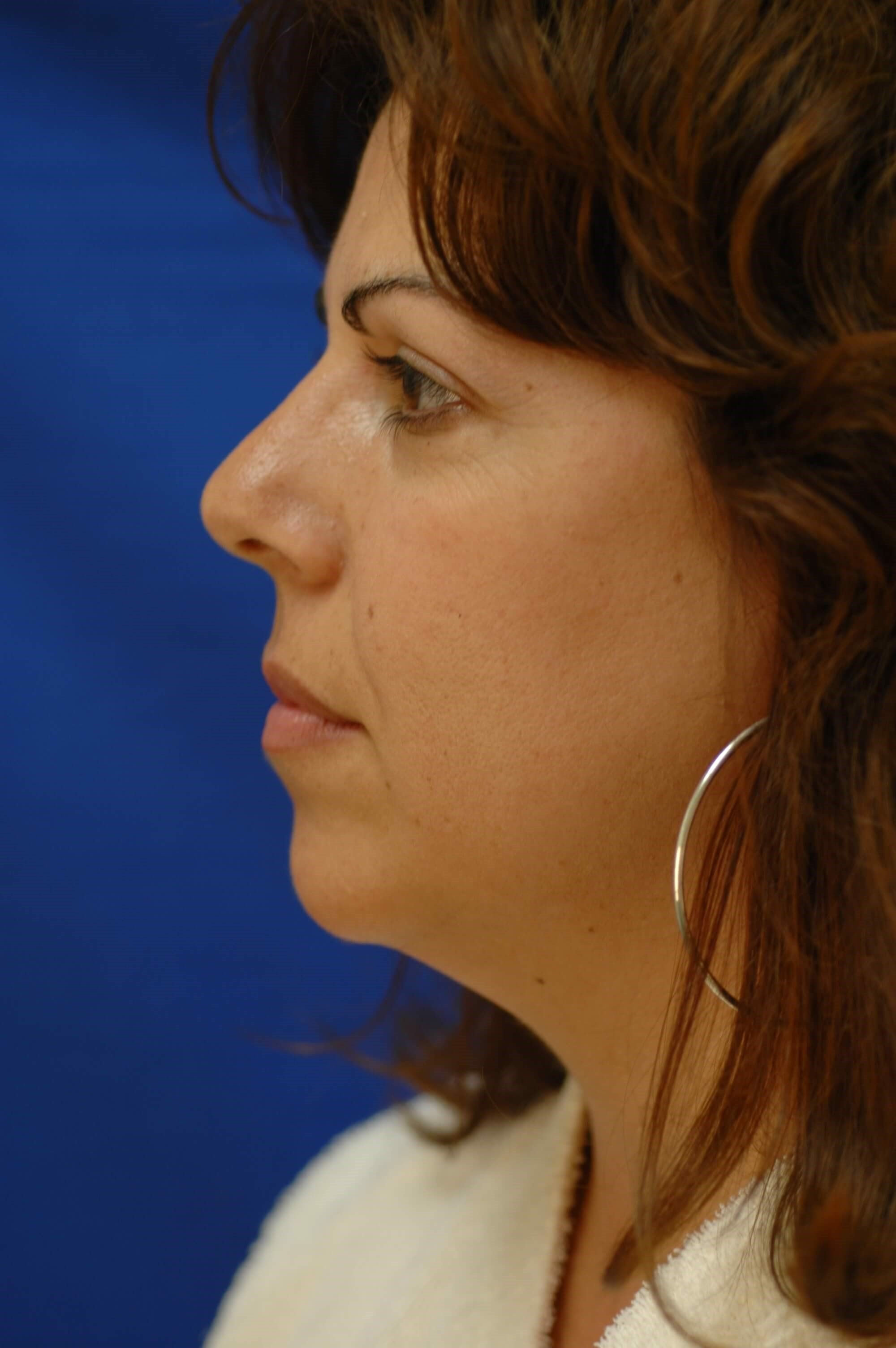 Newport Beach Chin Implant Before Side View
