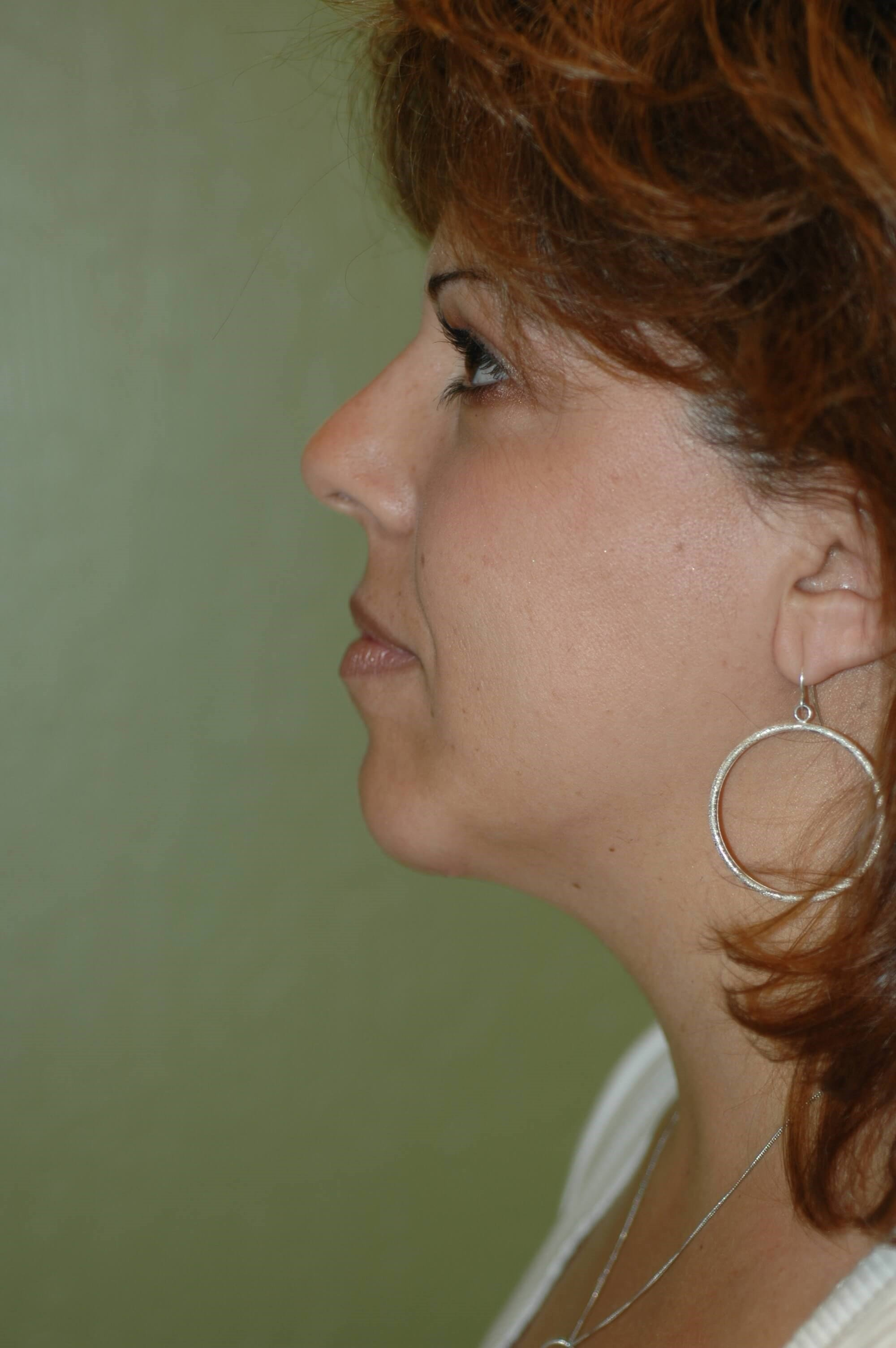 Newport Beach Chin Implant Front View After