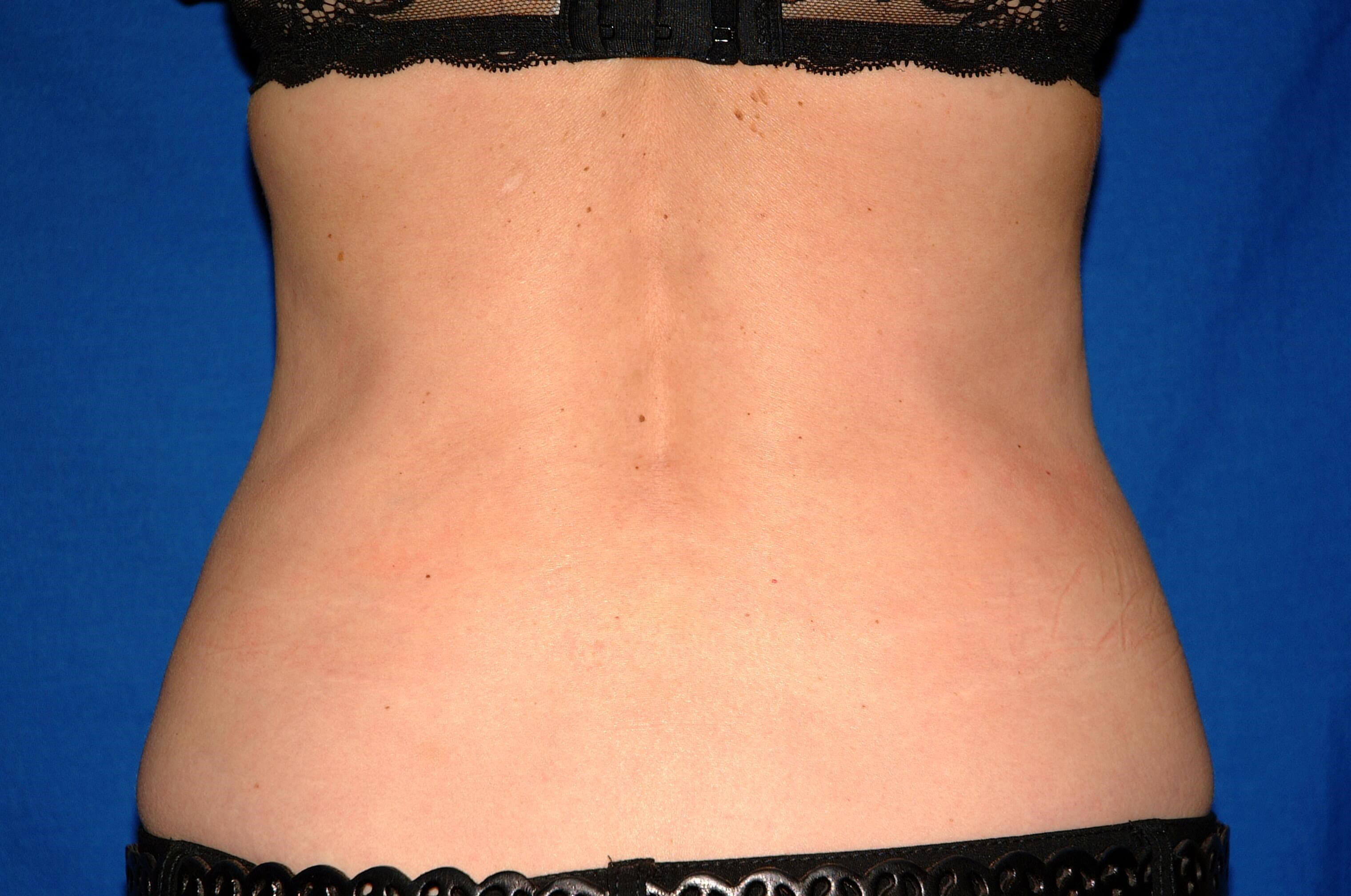 Newport Beach Liposuction After Back View