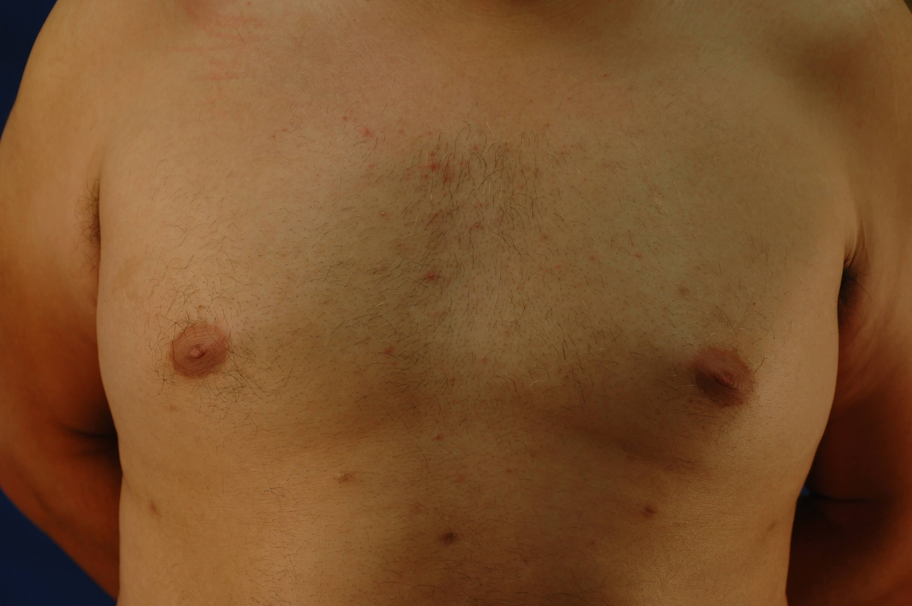 Newport Beach Gynecomastia After Front View