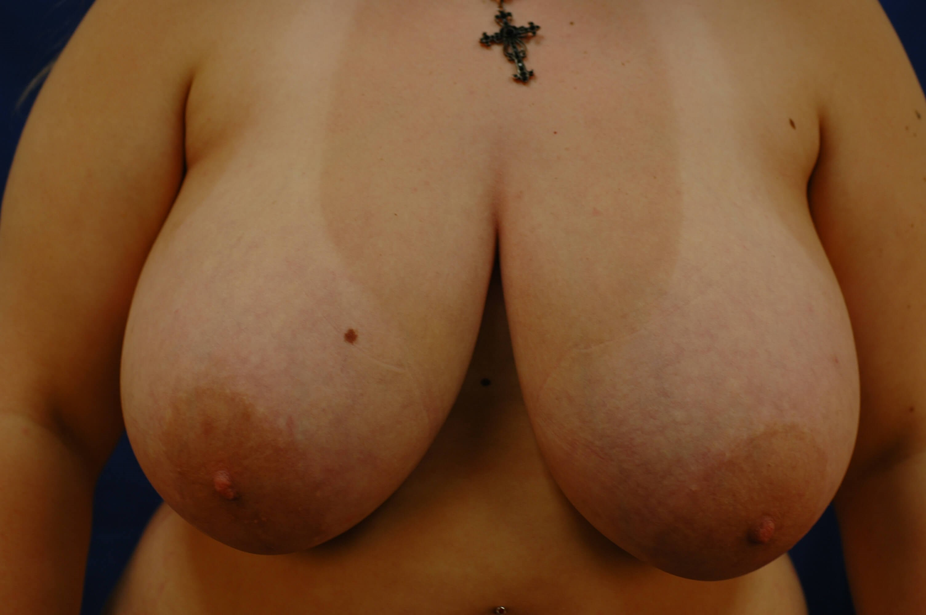 Newport Beach Breast Reduction Before