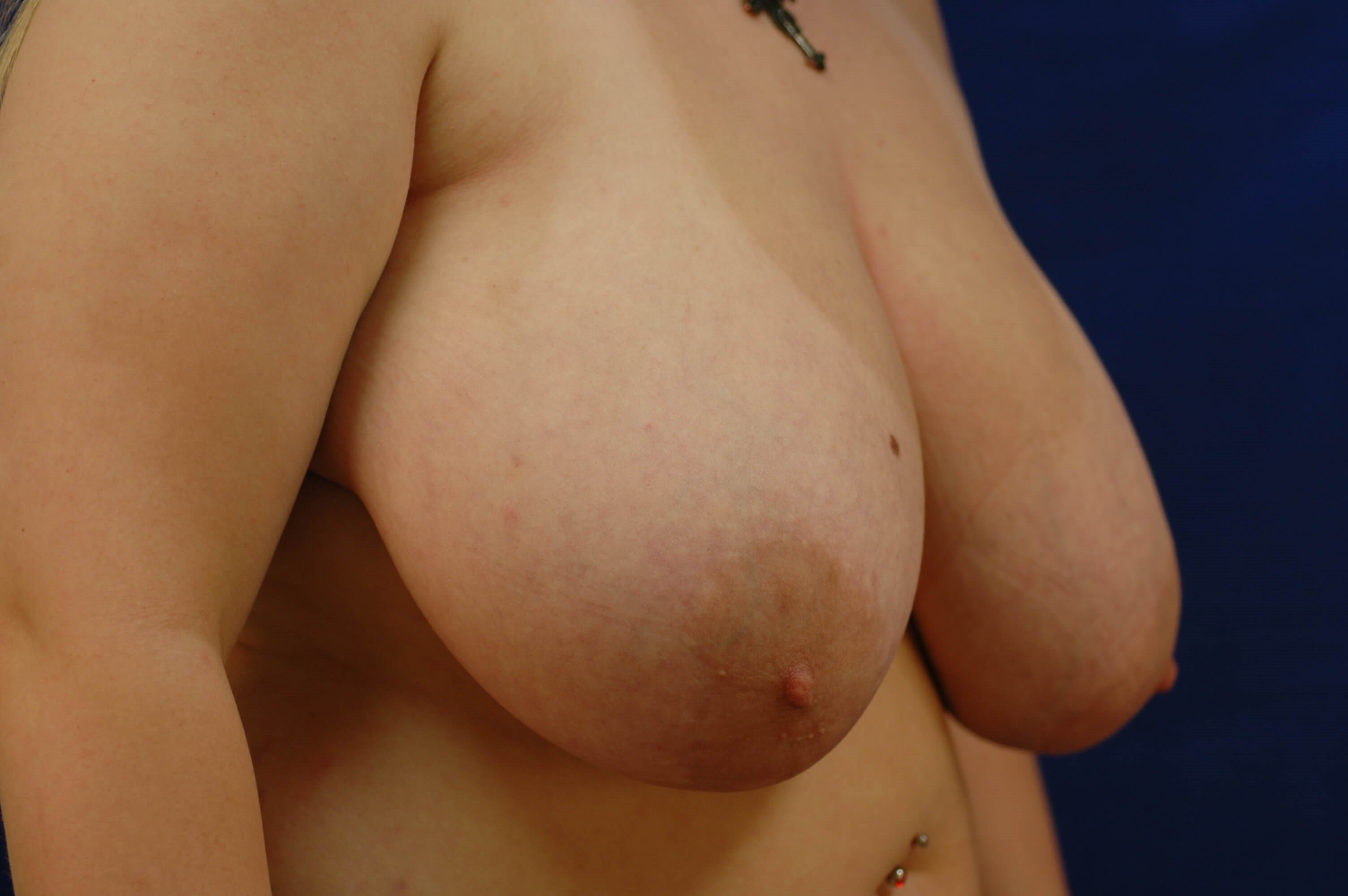 Newport Beach Breast Reduction Before Oblique