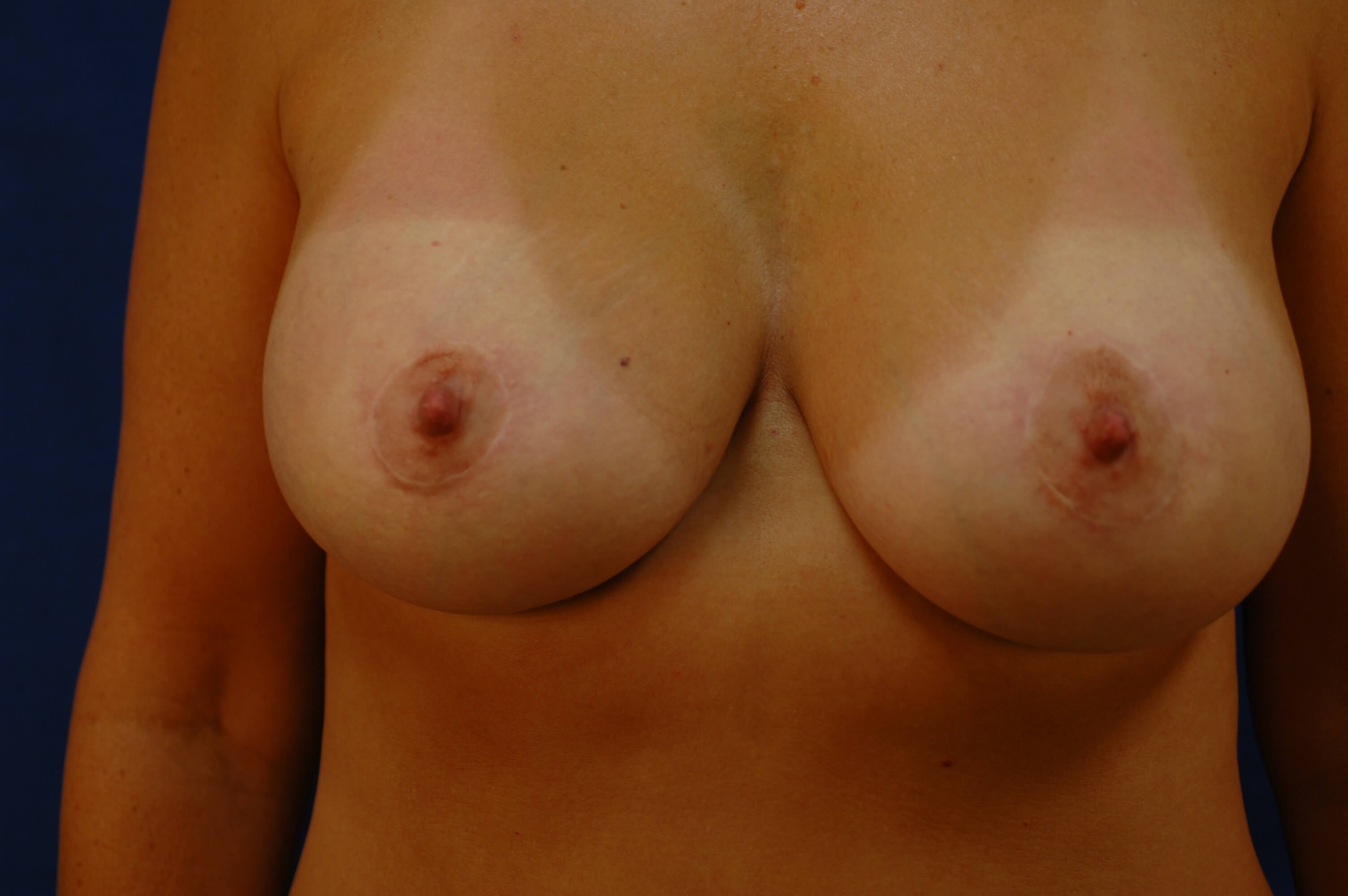 Newport Beach Breast Lift &Aug After Front View