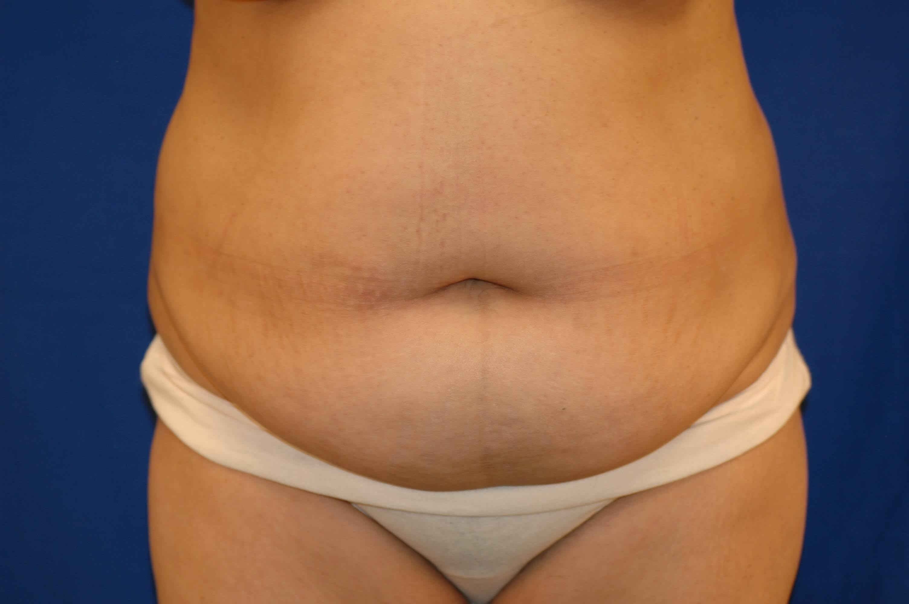 Newport Beach Liposuction Before Front View