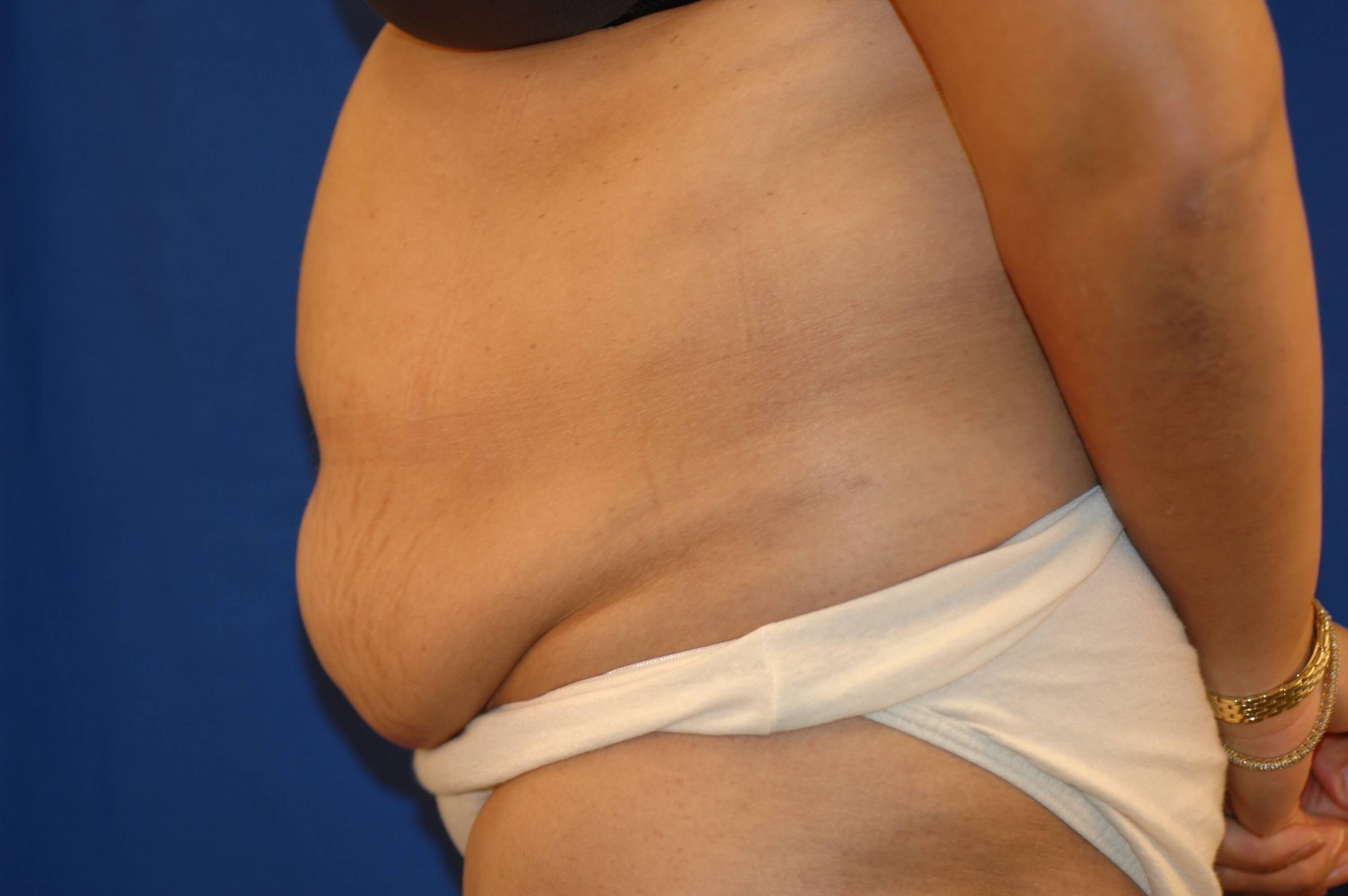 Newport Beach Liposuction Before Side View