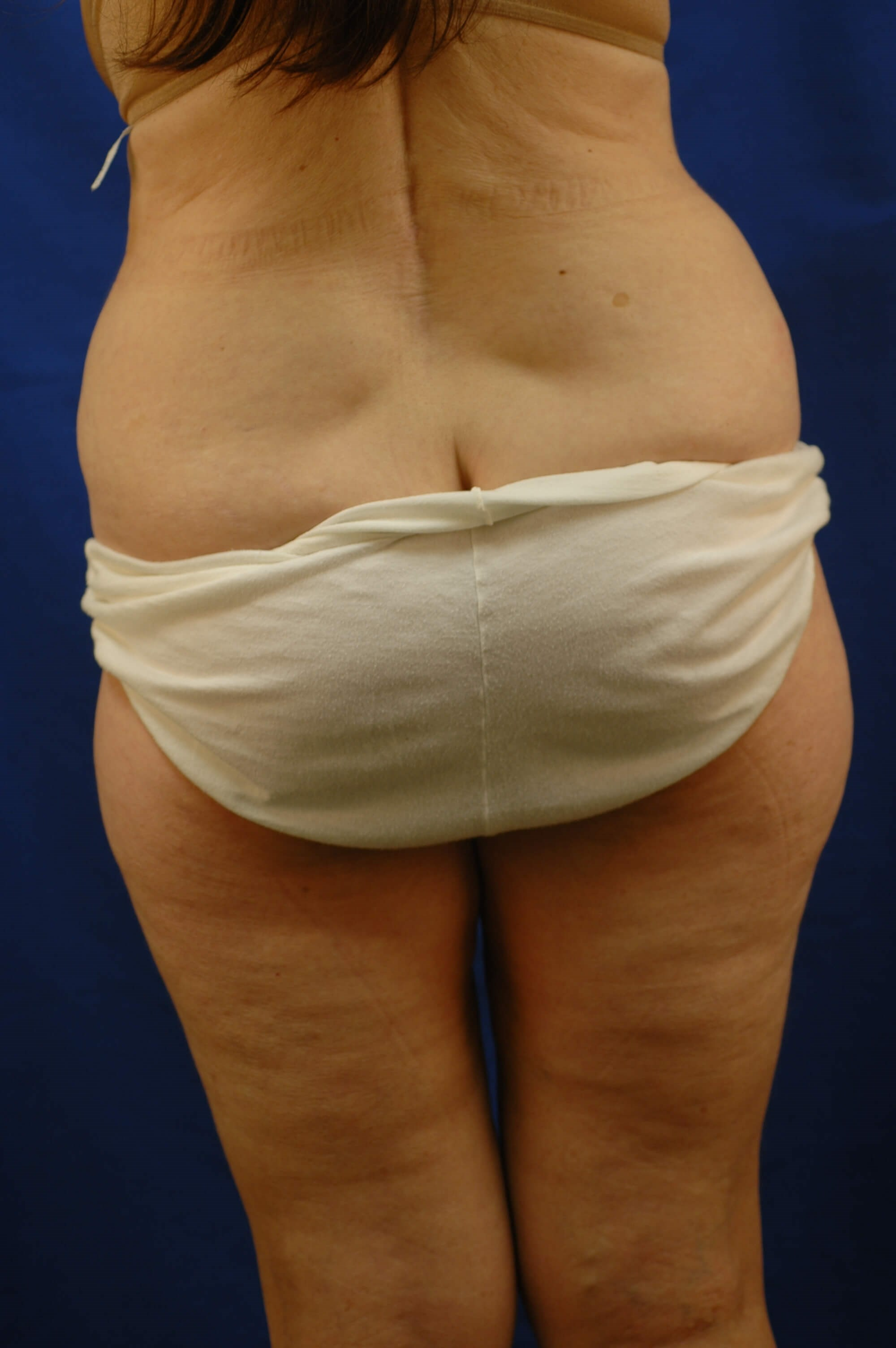 Newport Beach Liposuction Before Back View