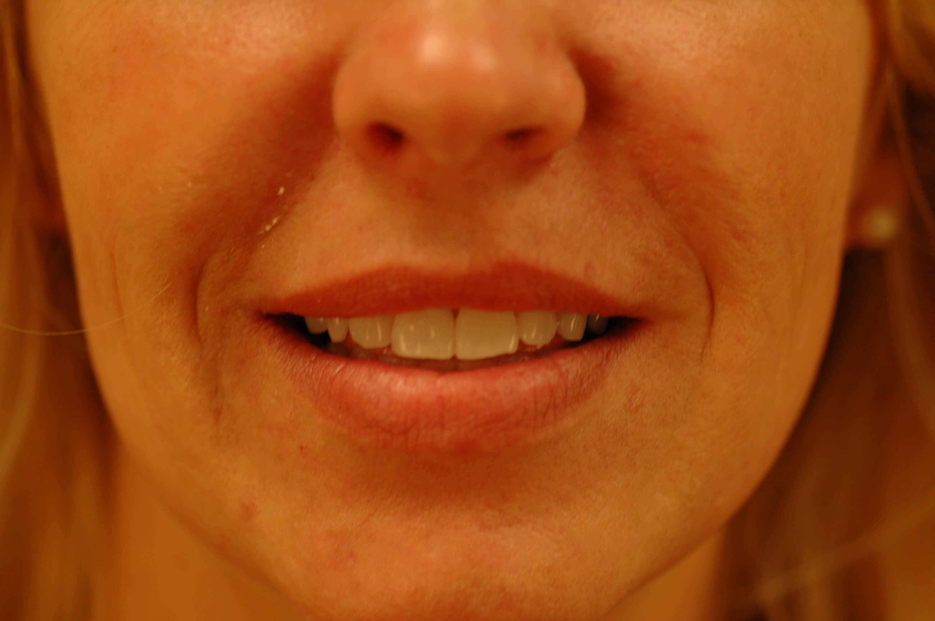 Newport Beach Lip Enhancement Before Front View