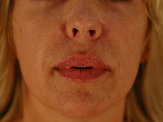 Newport Beach Lip Enhancement After Front View