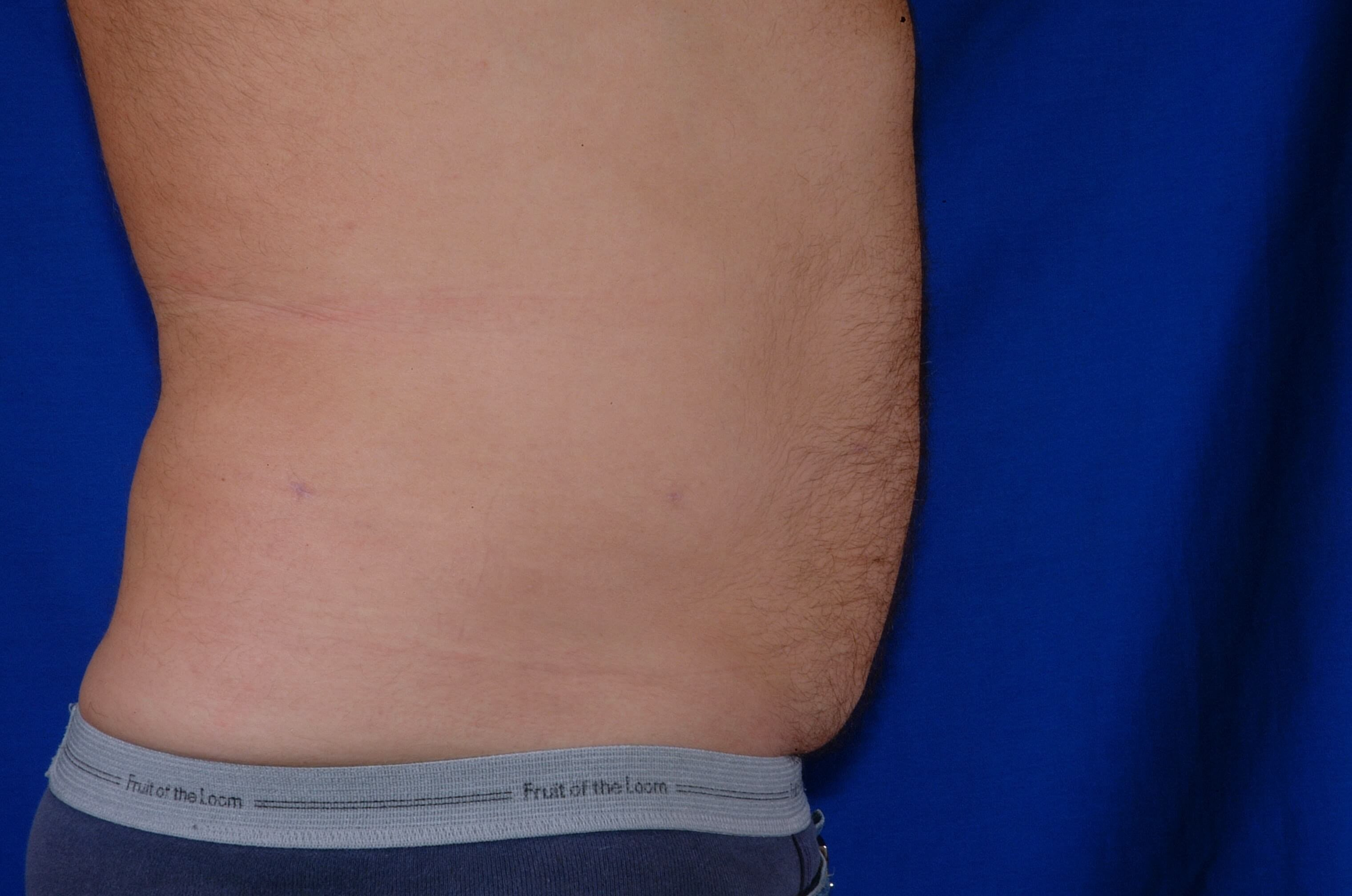 Newport Beach Liposuction After Side View