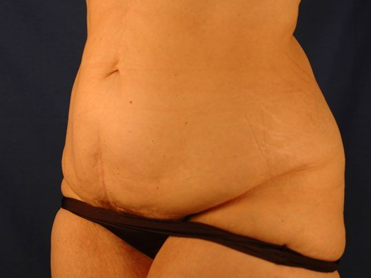 Newport Beach Post Weight Loss Oblique View Before
