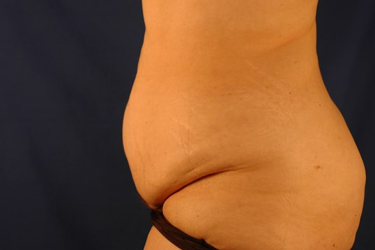 Newport Beach Post Weight Loss Side View Before