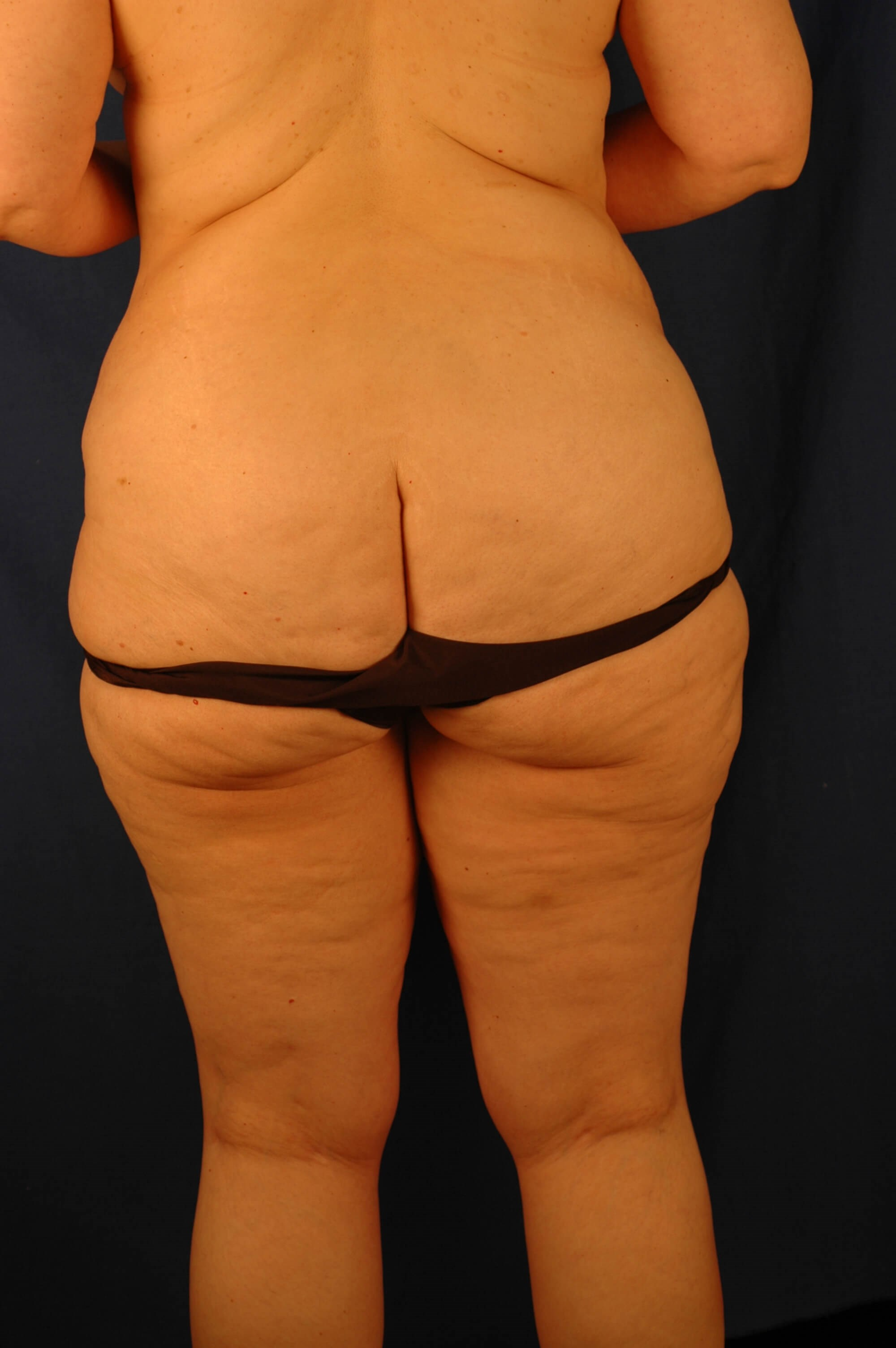 Newport Beach Post Weight Loss Before Back View