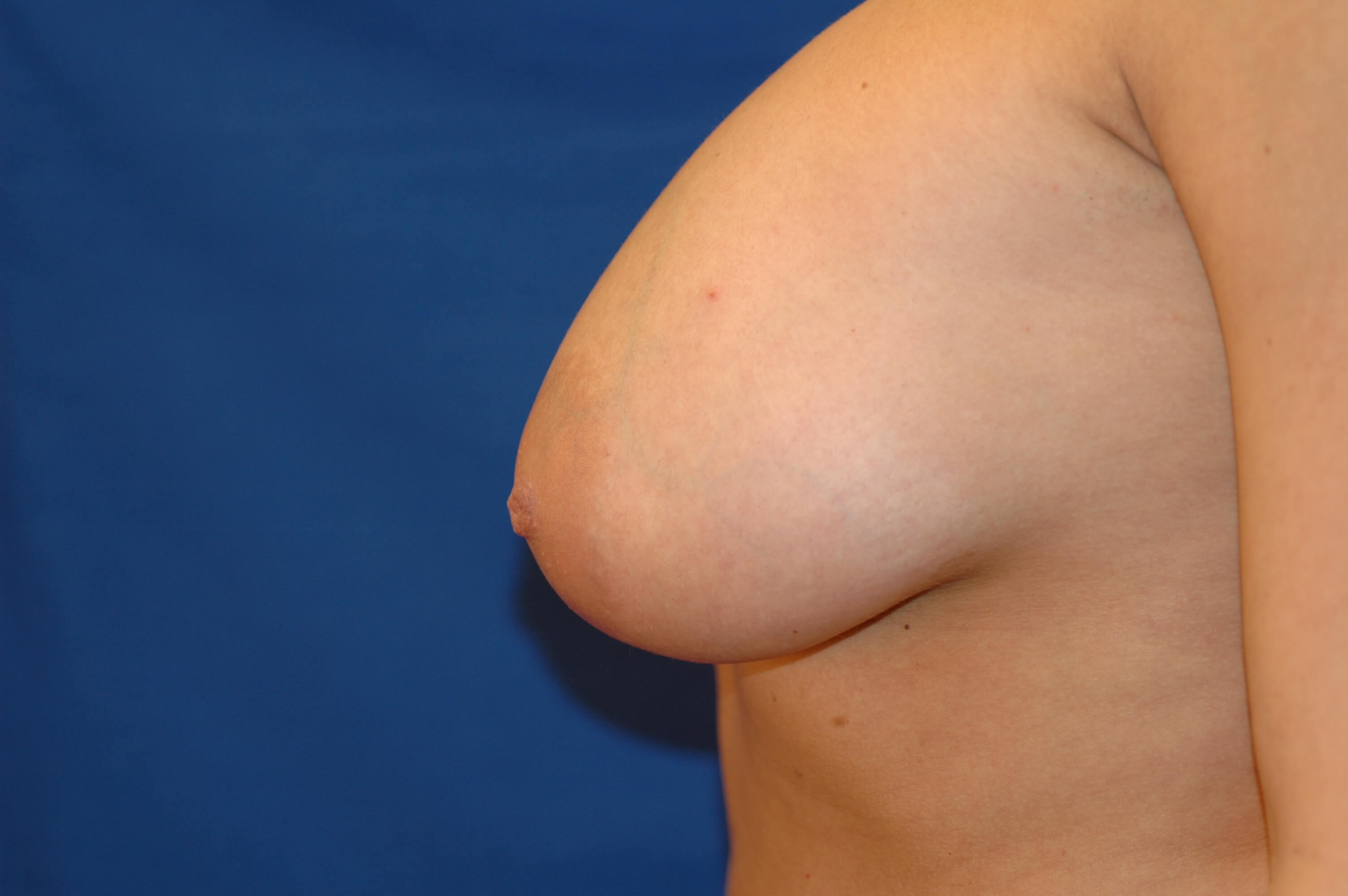 Newport Beach Breast Lift Before Side View