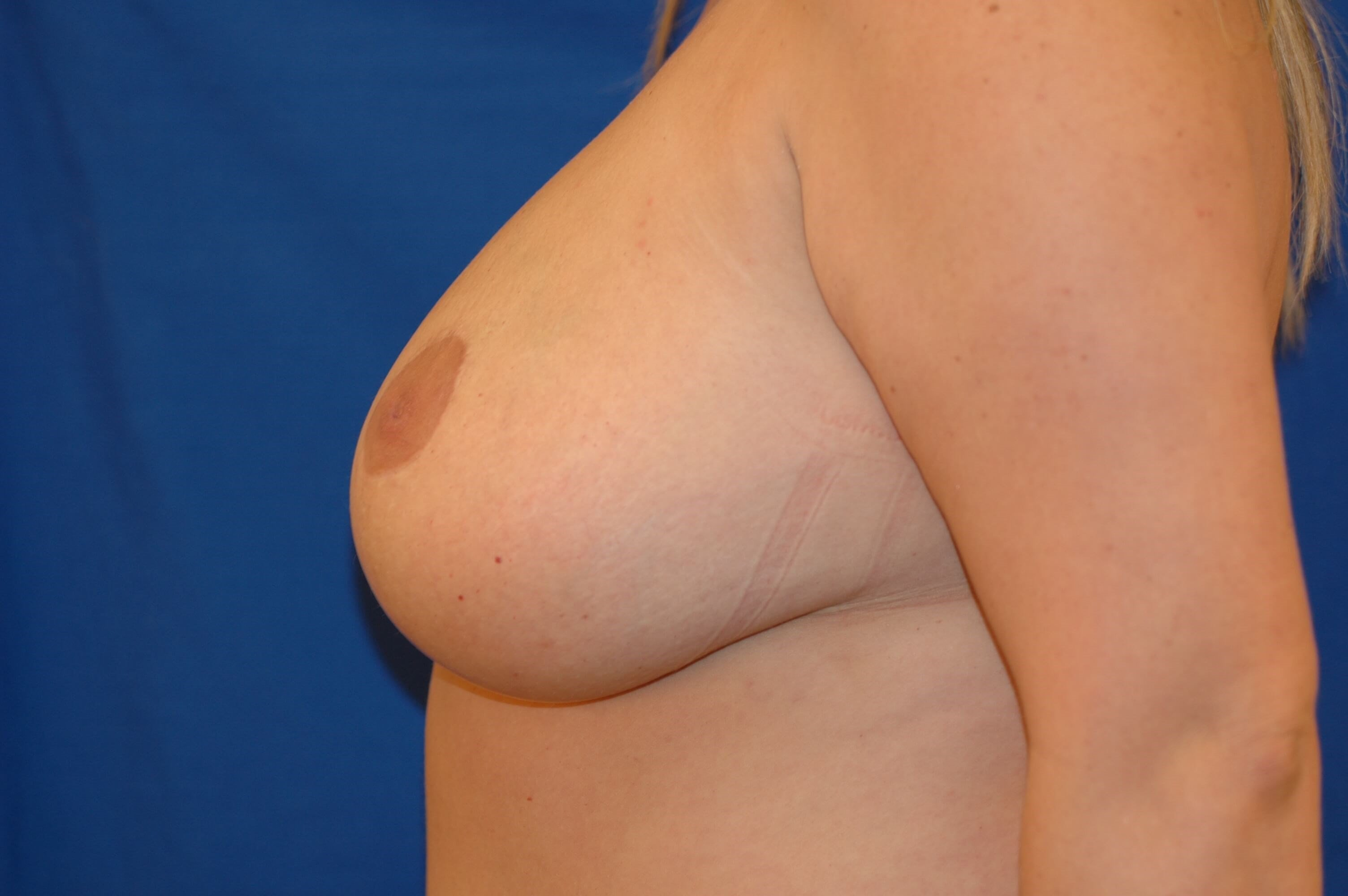 Newport Beach Breast Lift After Side View