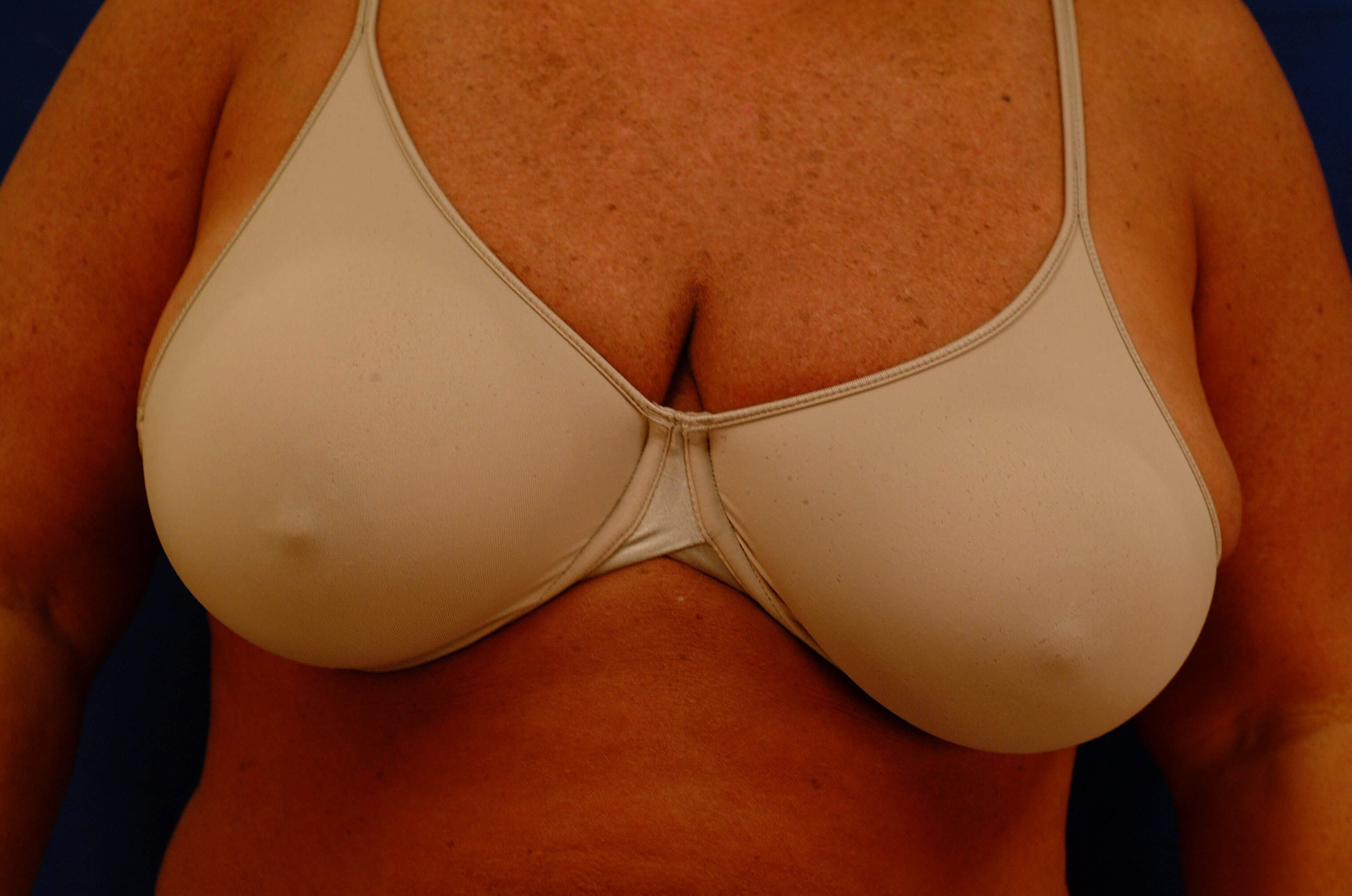 Newport Beach Breast Reduction Before Front View