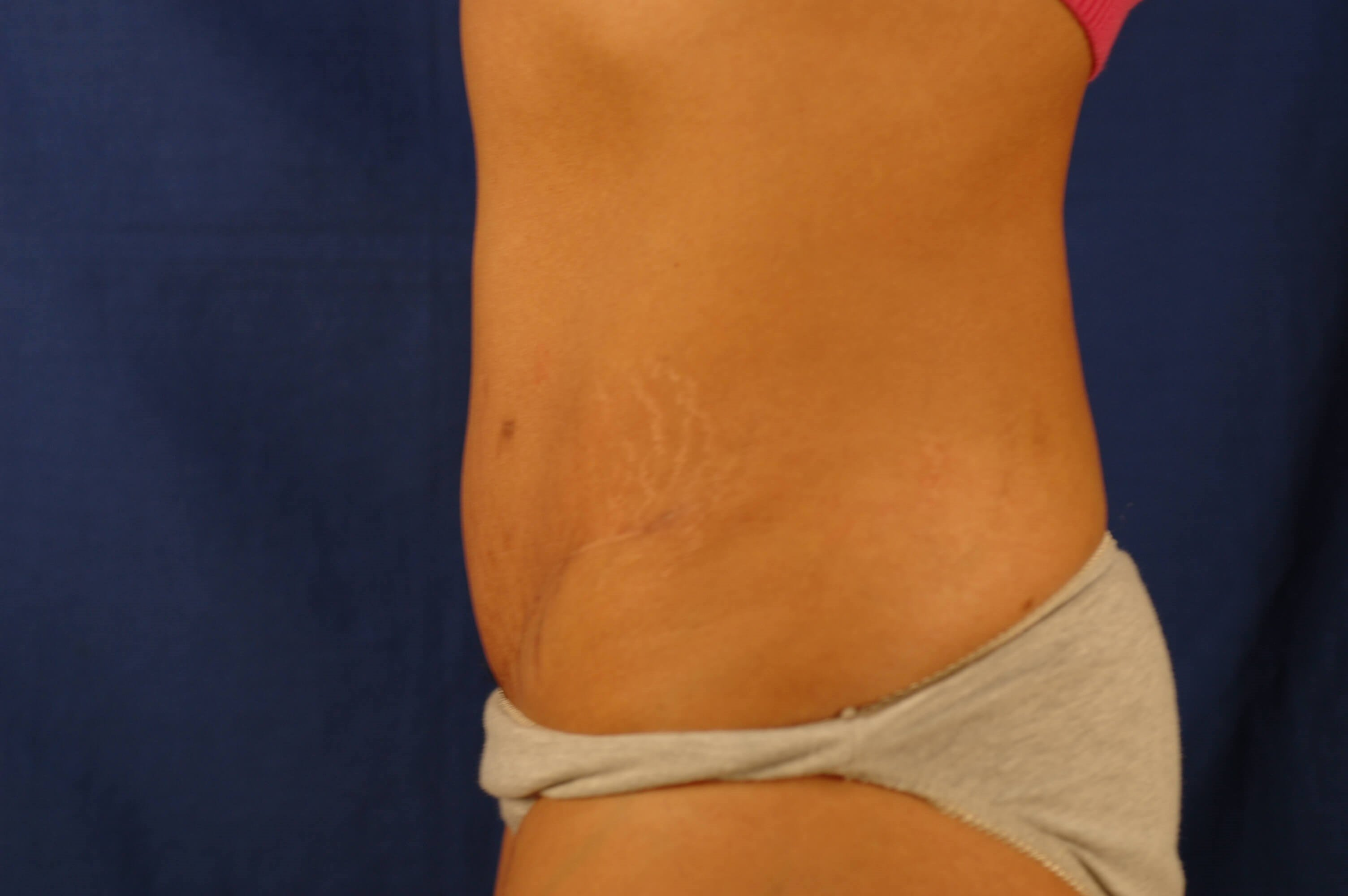 Newport Beach Tummy Tuck After Side View