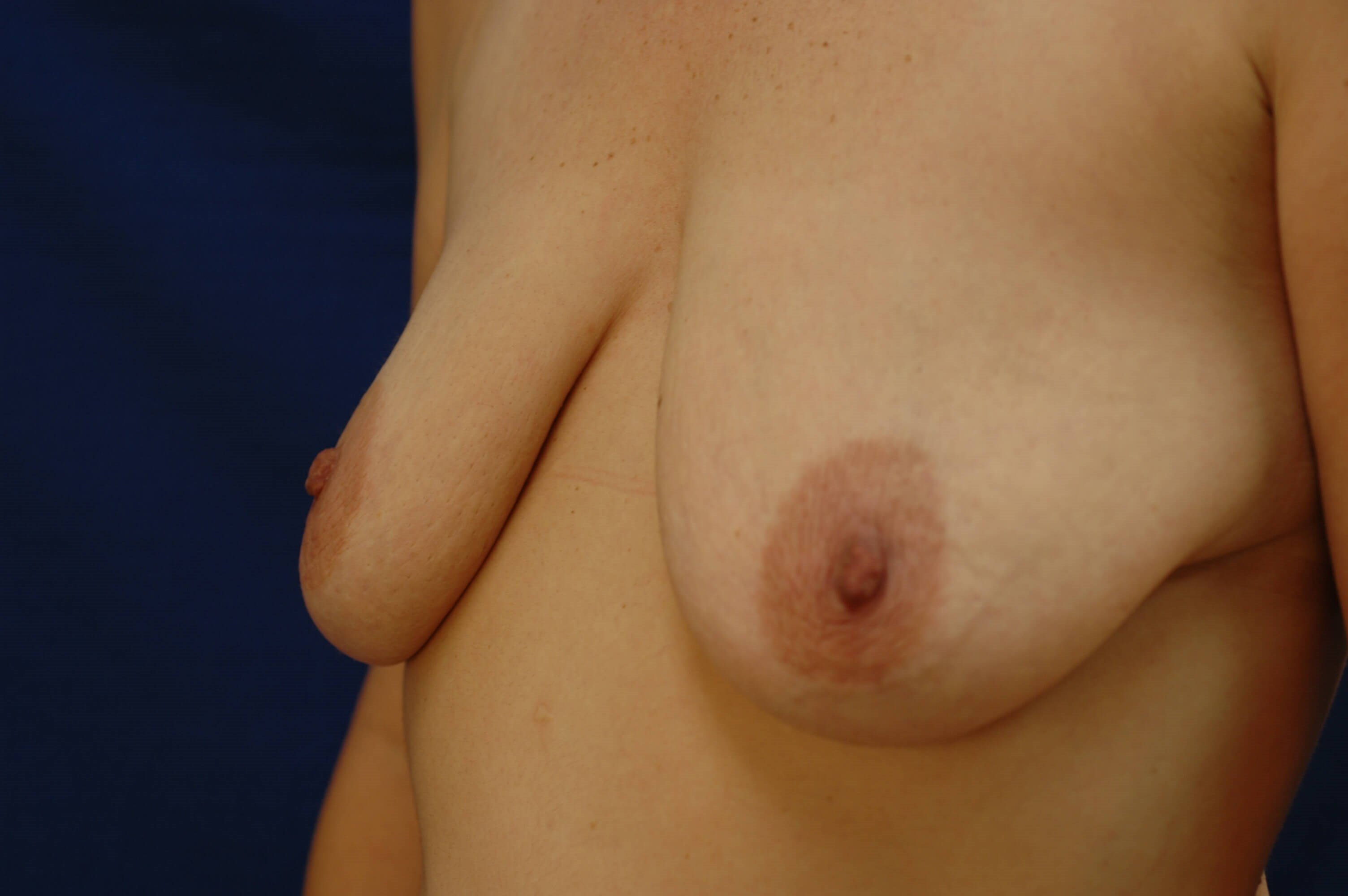 Newport Beach Breast Lift &Aug Oblique View Before