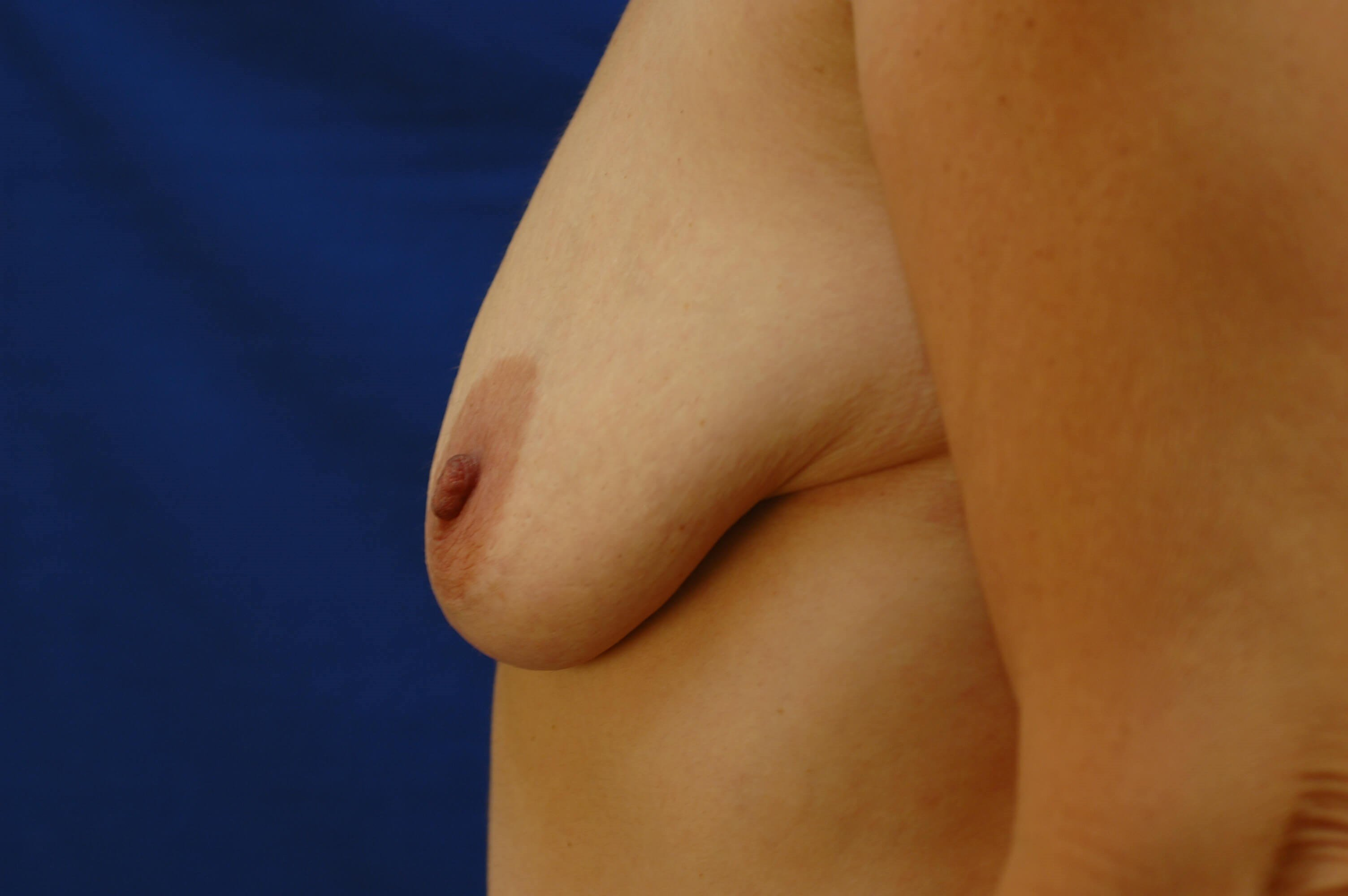 Newport Beach Breast Lift &Aug Side View Bent Before